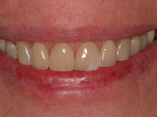Veneers, Whitening Refresh Before