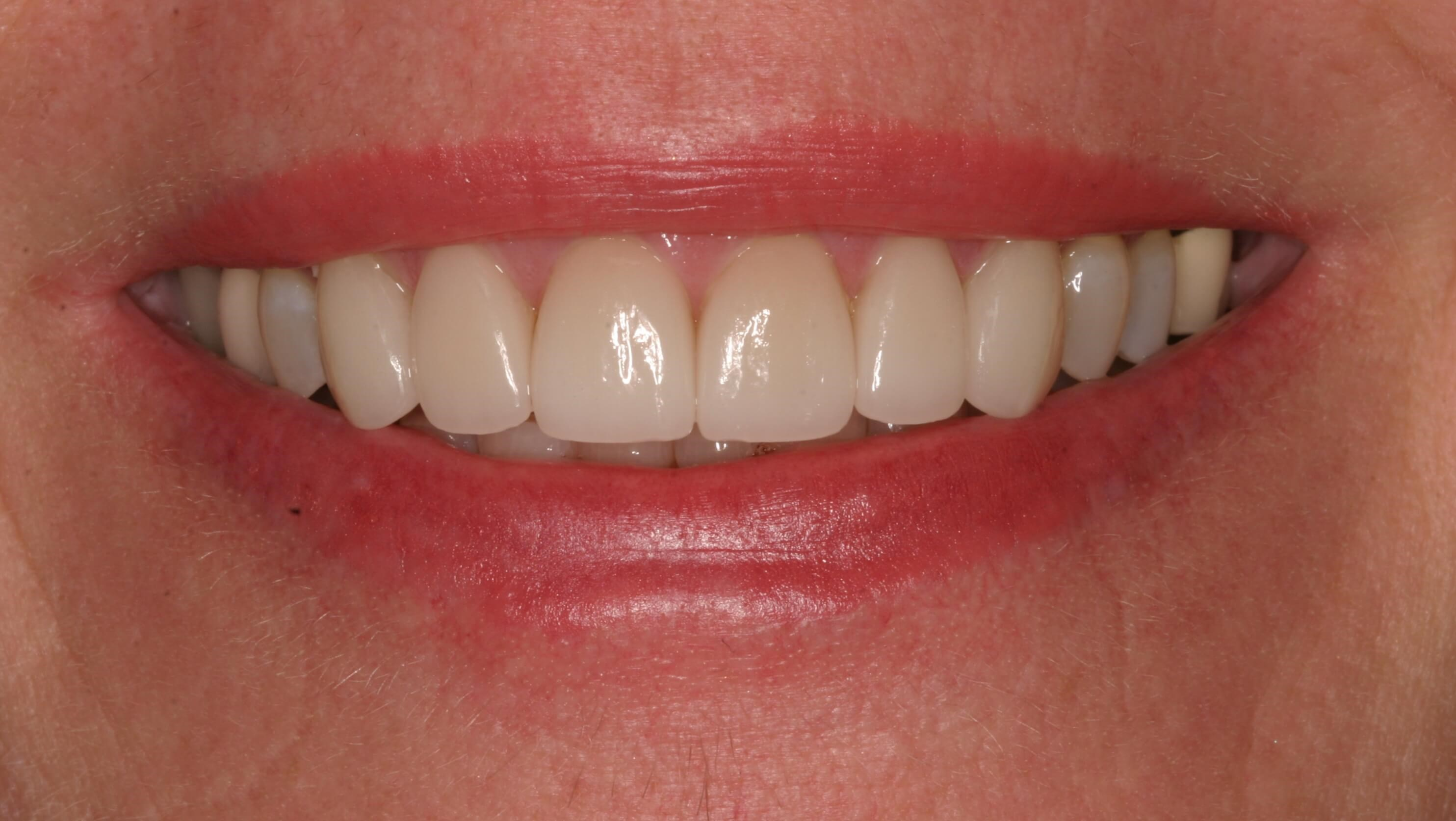 Veneers, Whitening Refresh After