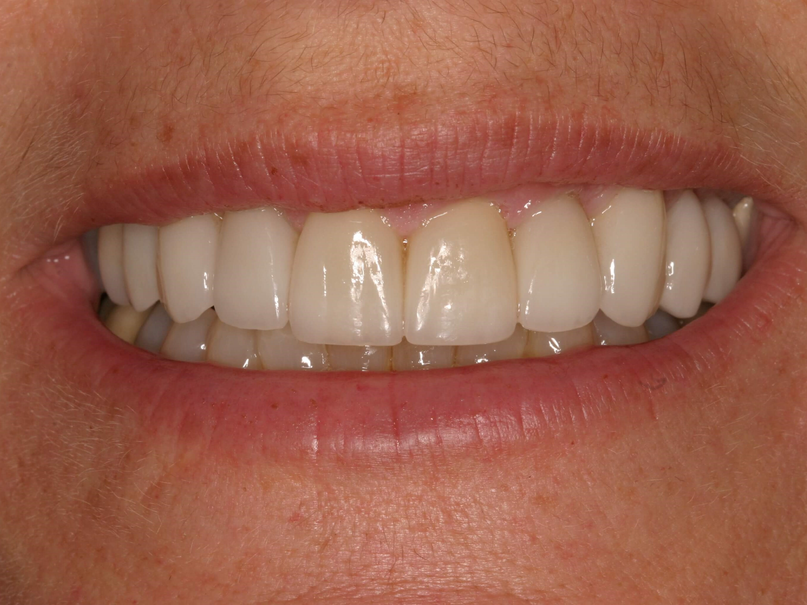 A Dream (Non-Gummy) Smile! After