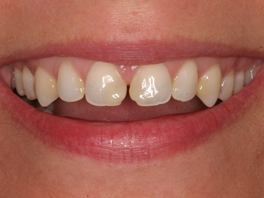 Veneers Eliminate Spaces! Before