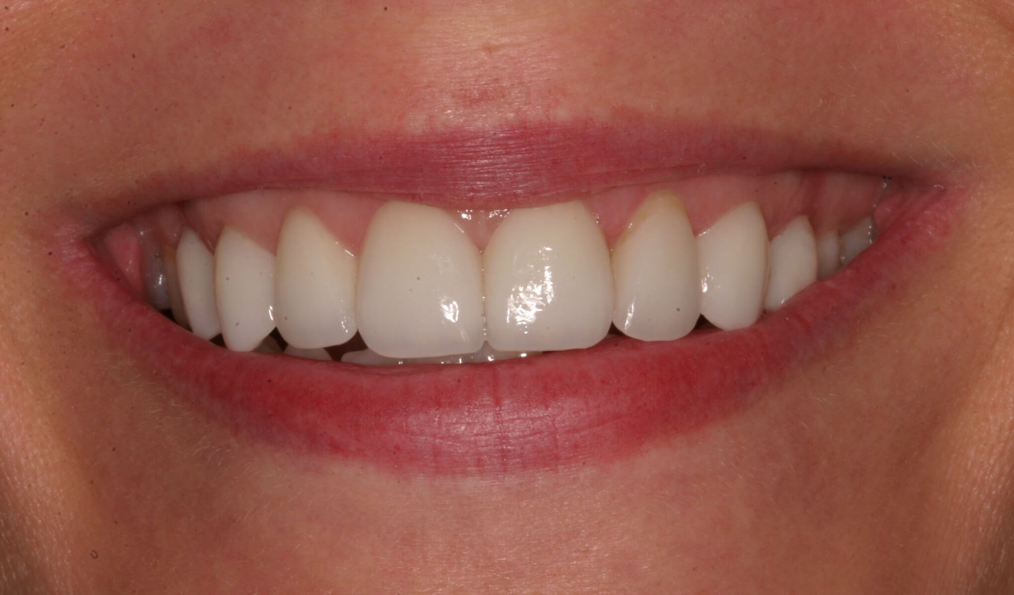 Veneers Eliminate Spaces! After