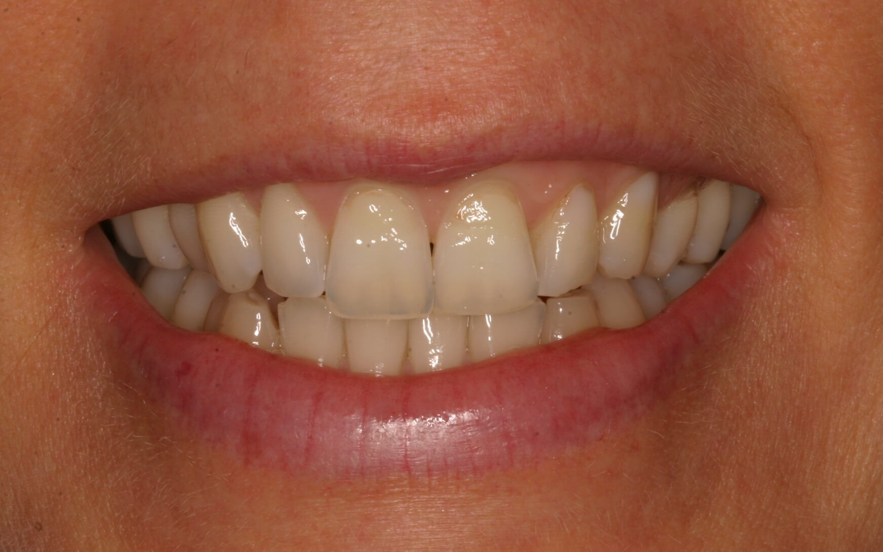 Two Weeks, A Beautiful Smile! Before