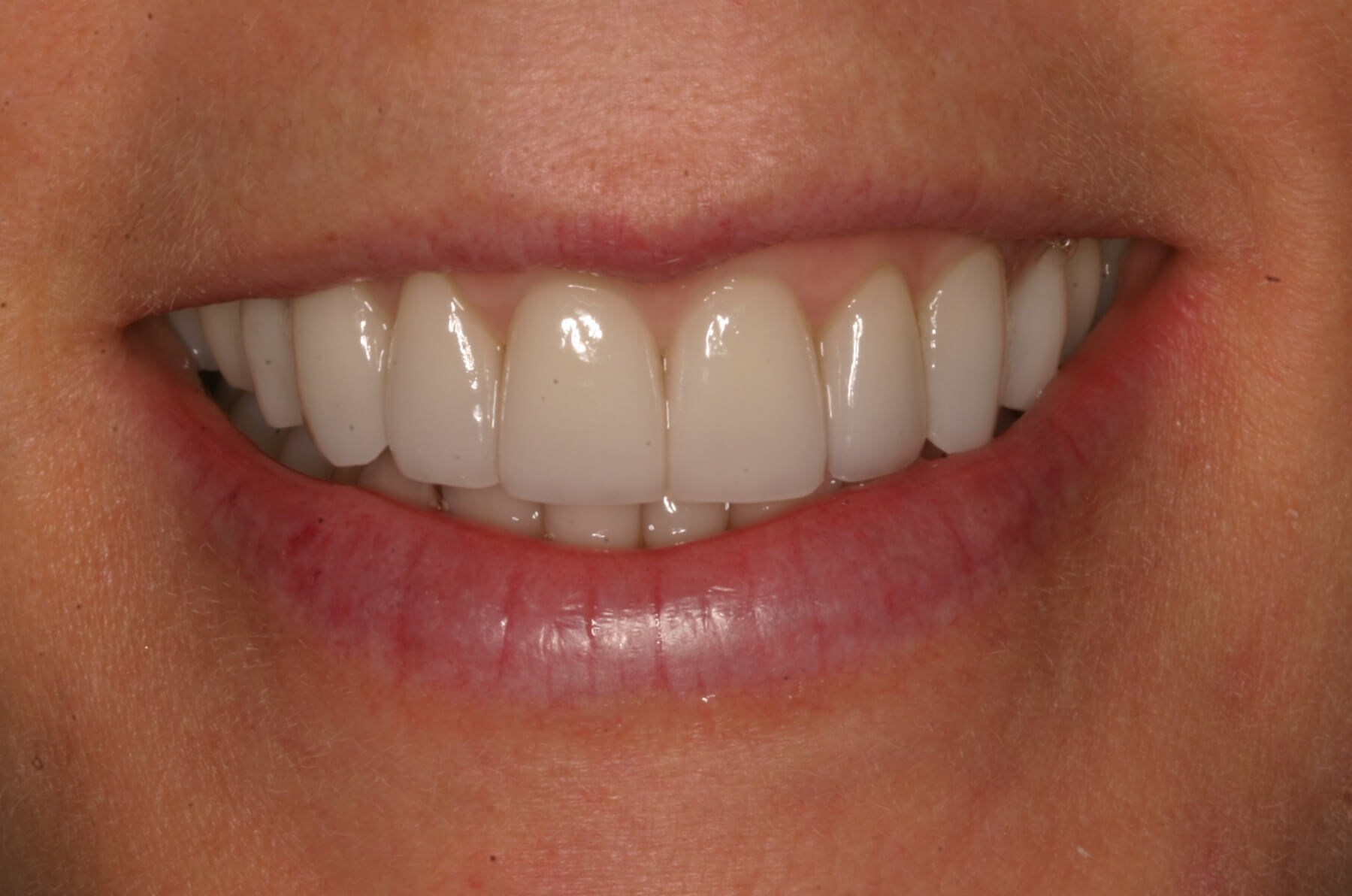Two Weeks, A Beautiful Smile! After