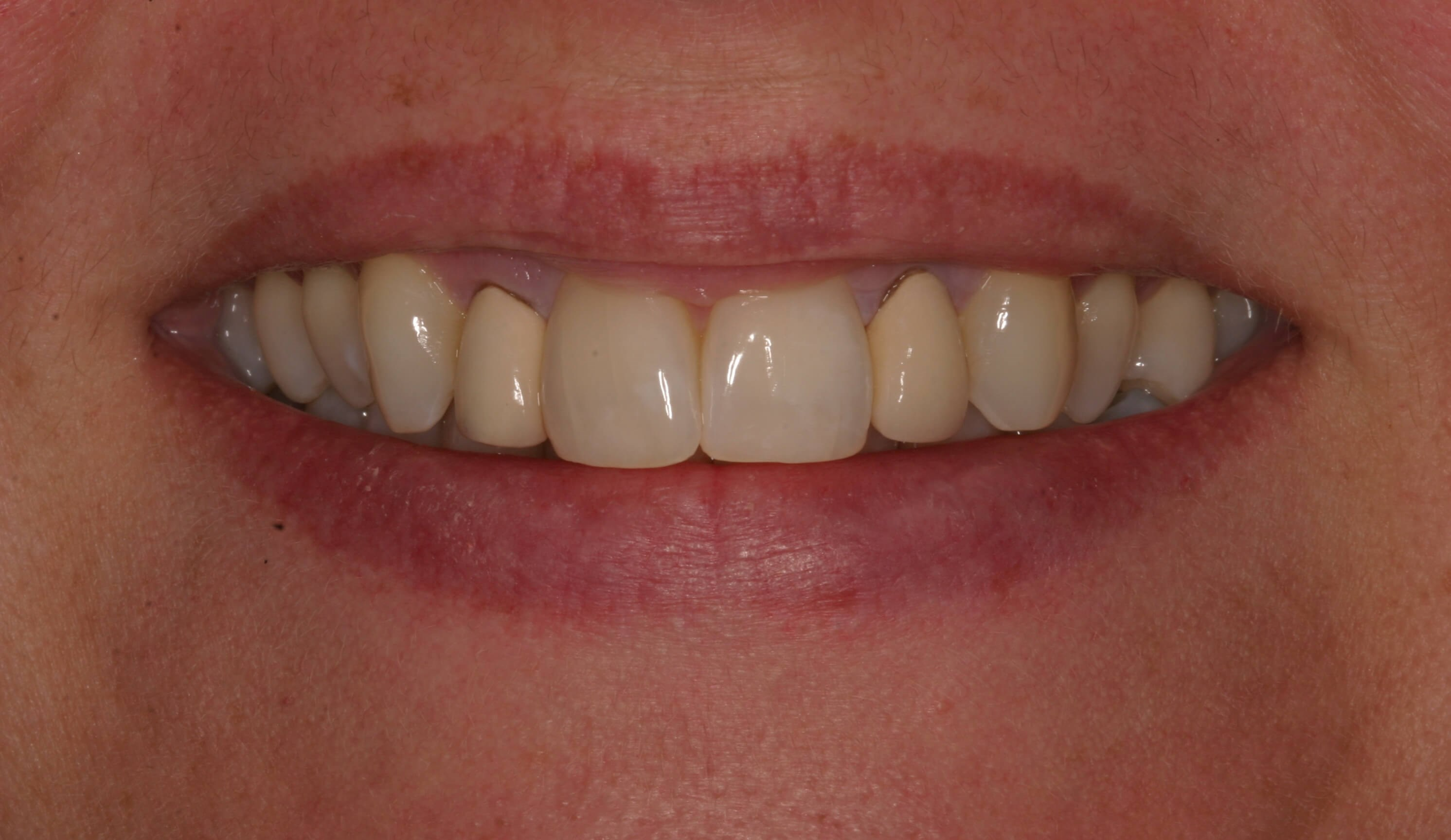A Symmetrical Smile Makeover! Before