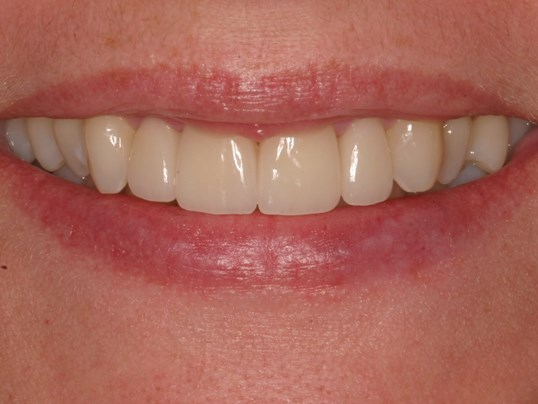 A Symmetrical Smile Makeover! After