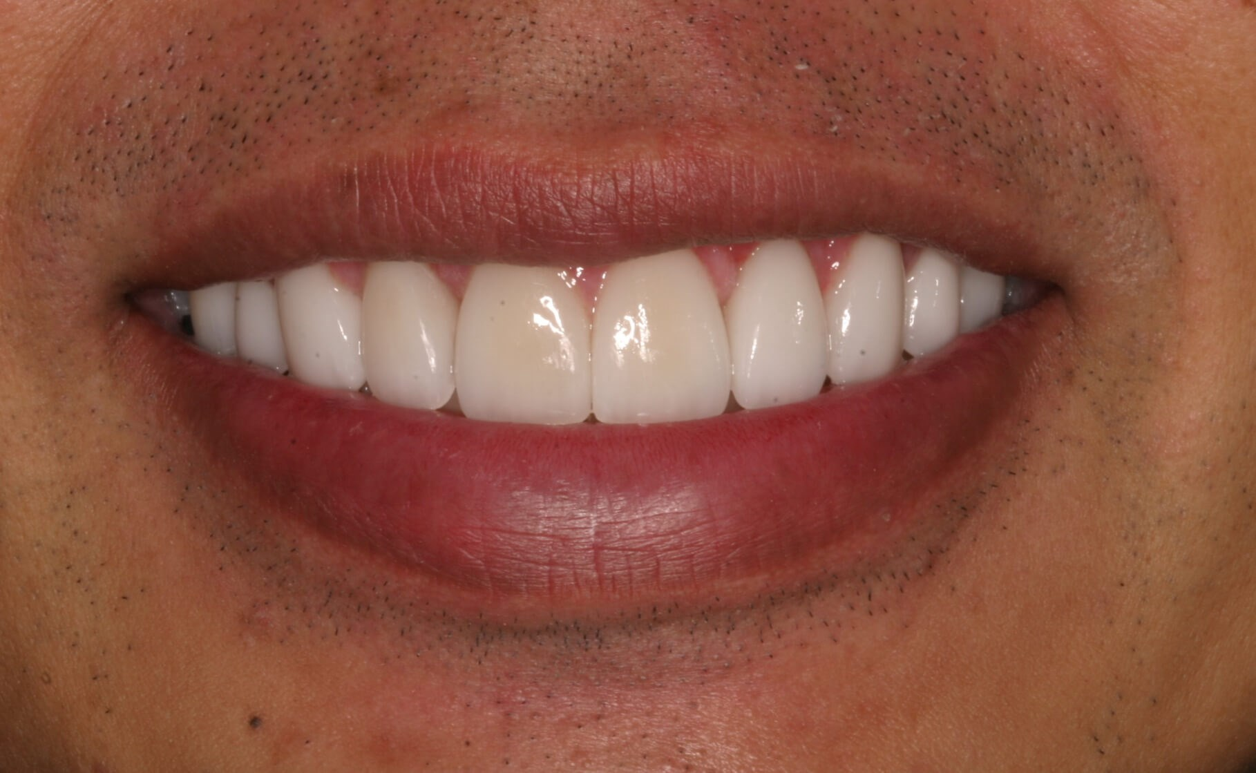 Small Teeth to Generous Smile! After
