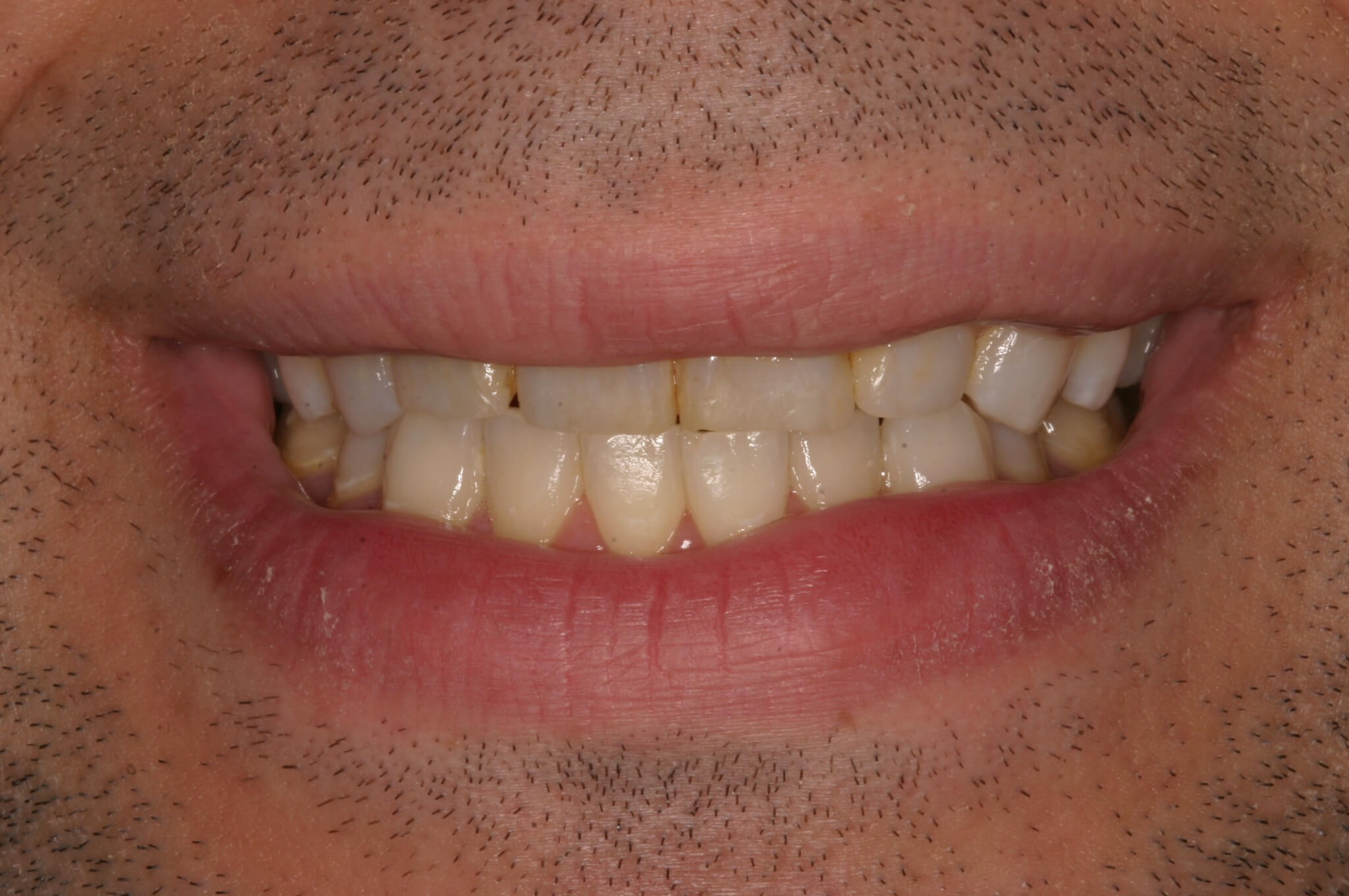 Worn Teeth to Great Smile! Before