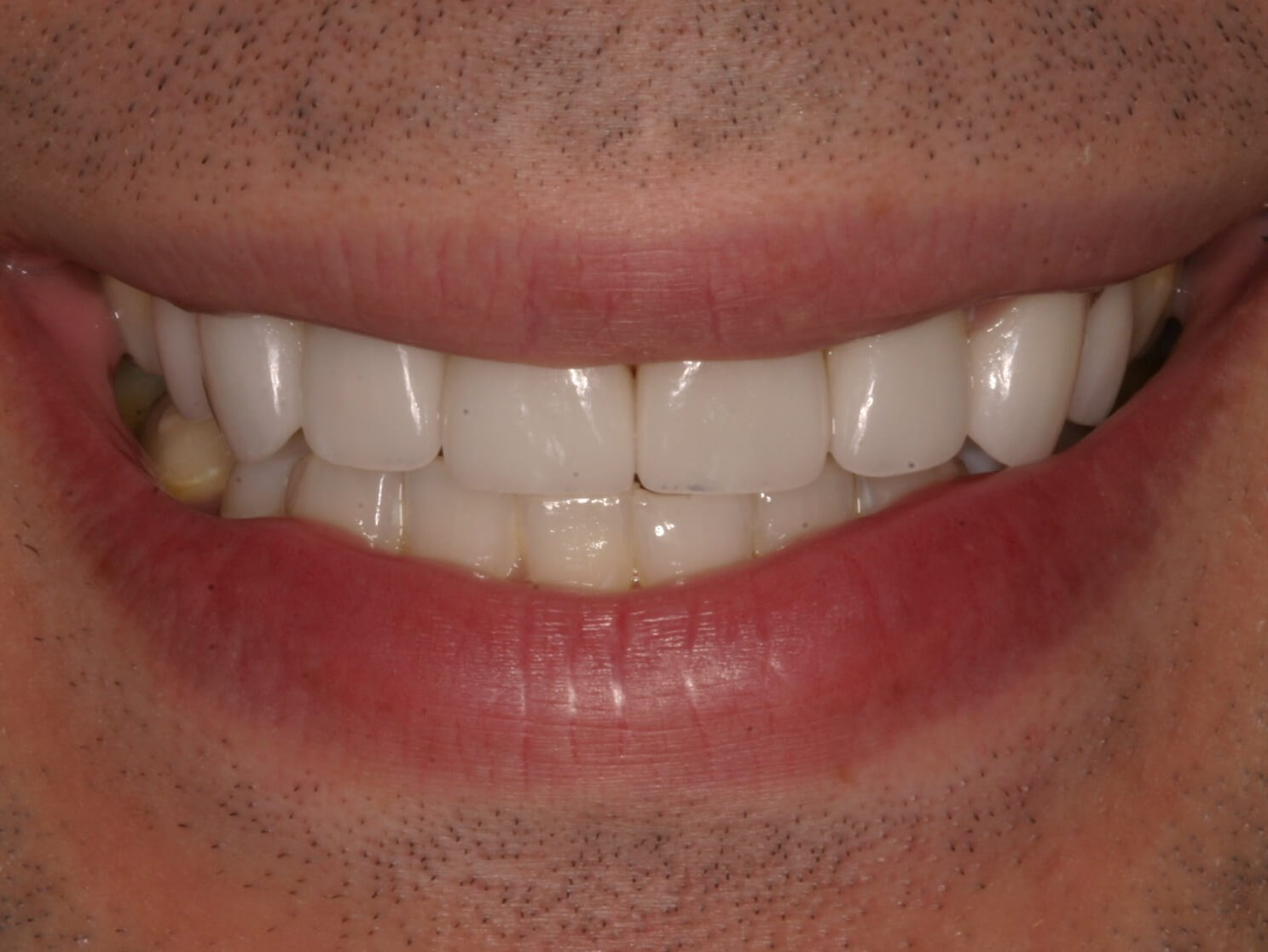 Worn Teeth to Great Smile! After