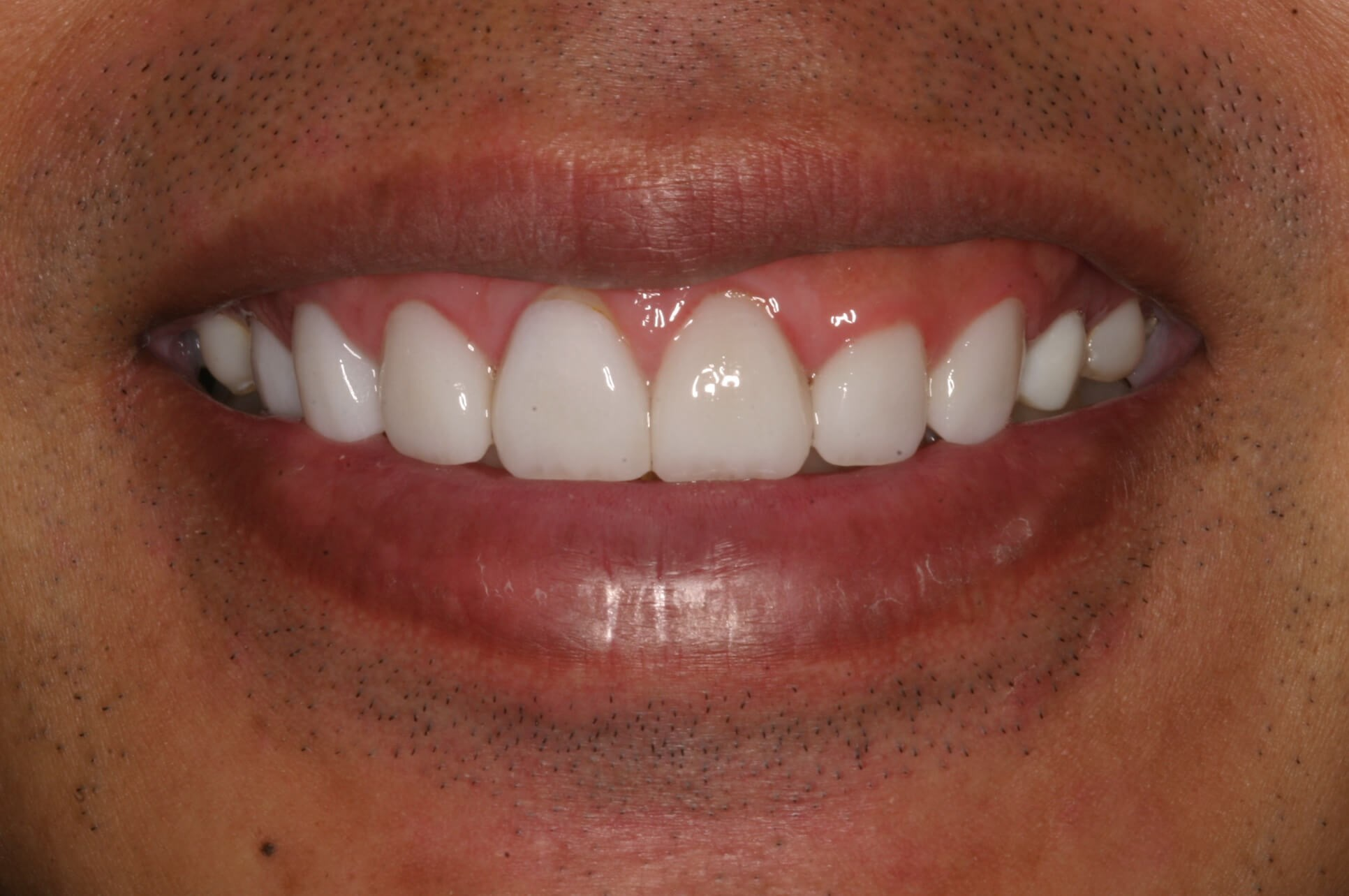 Veneers Conquer Gummy Smile Before