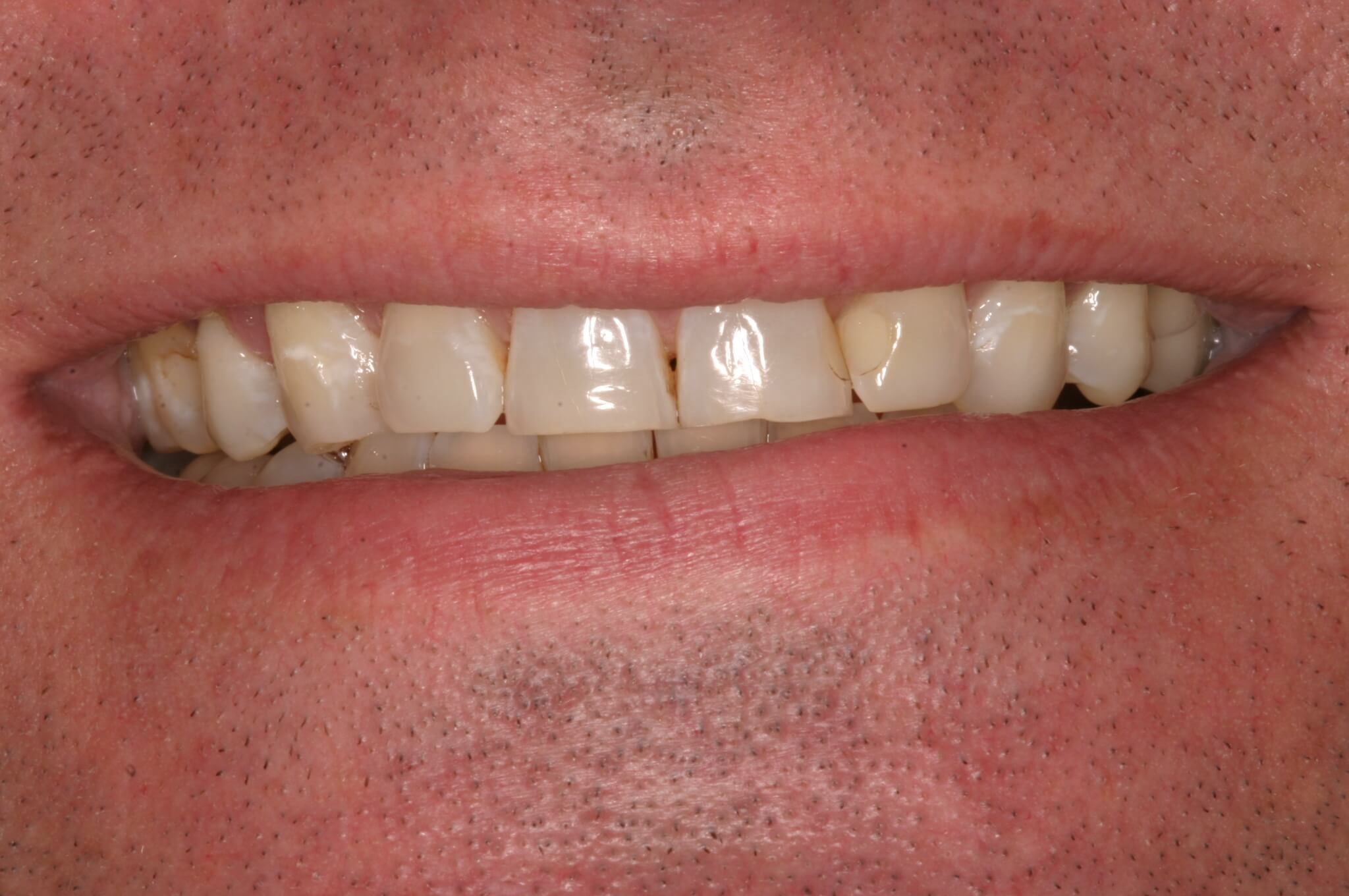 Upper Veneers Save the Day Before