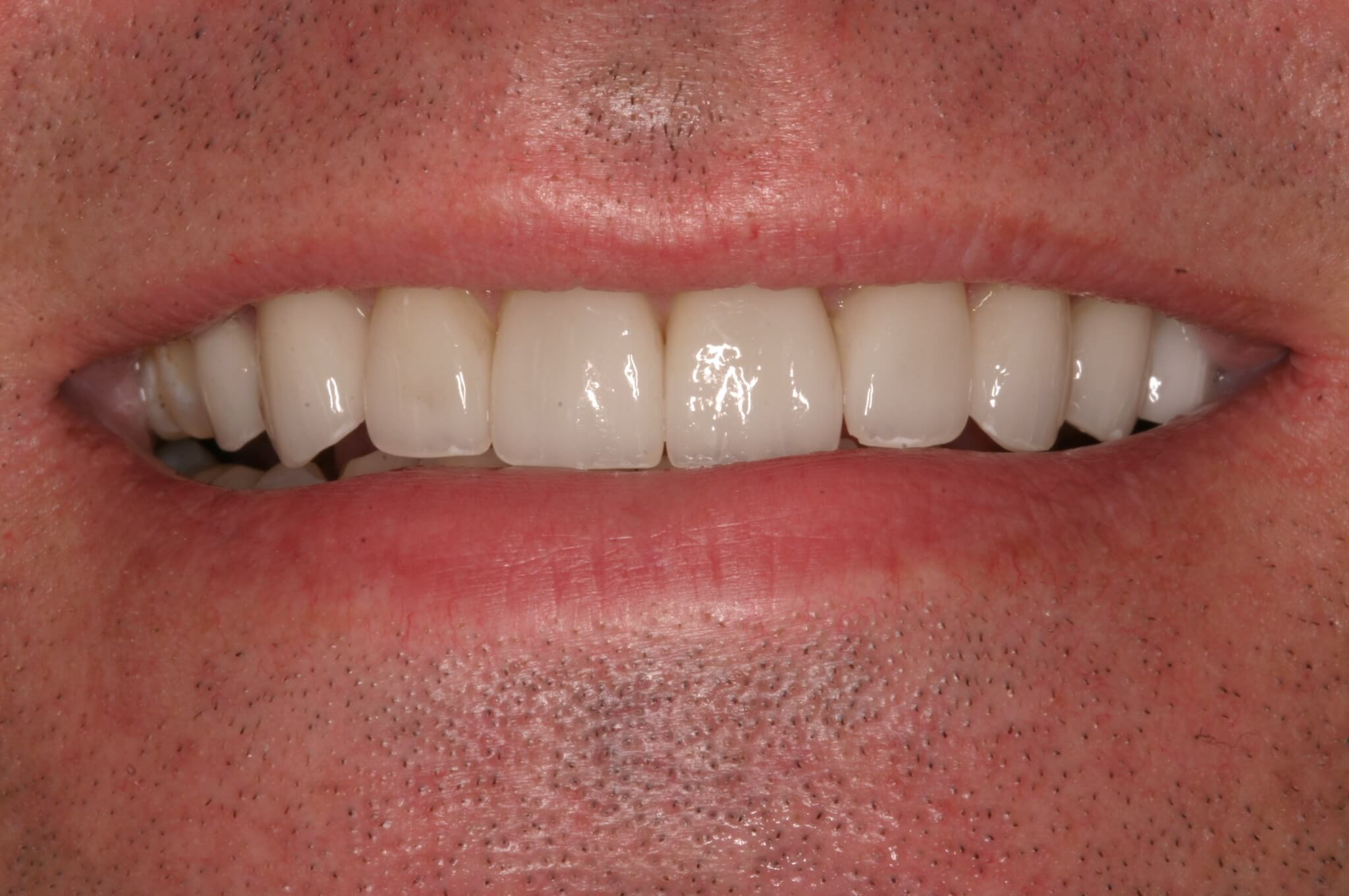 Upper Veneers Save the Day After