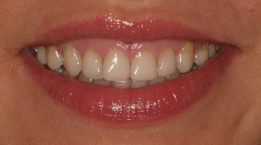 Gummy Smile Gone with Veneers Before