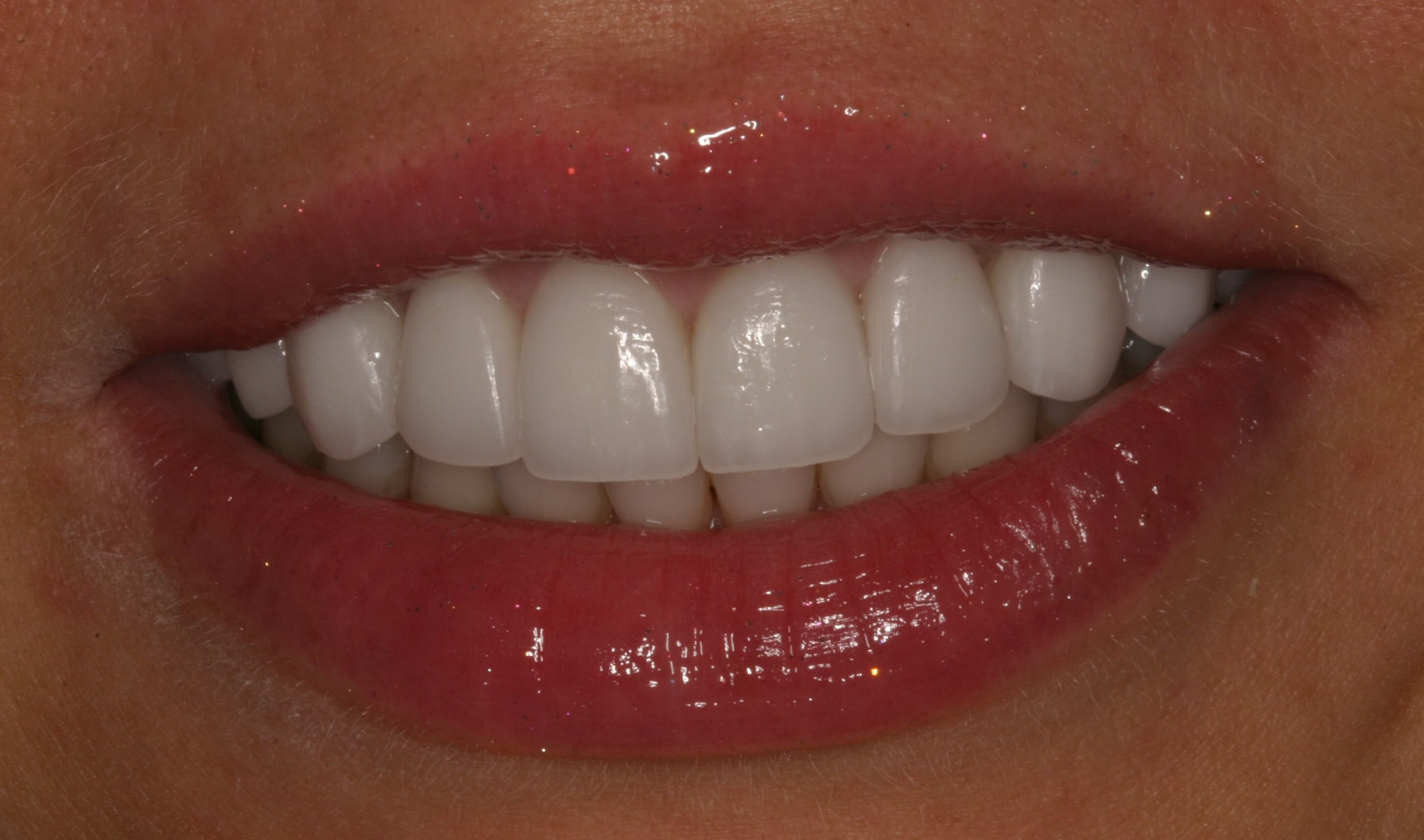 Gummy Smile Gone with Veneers After