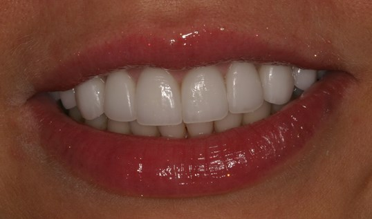 Veneers and Gum Reshaping Perfect Solution to