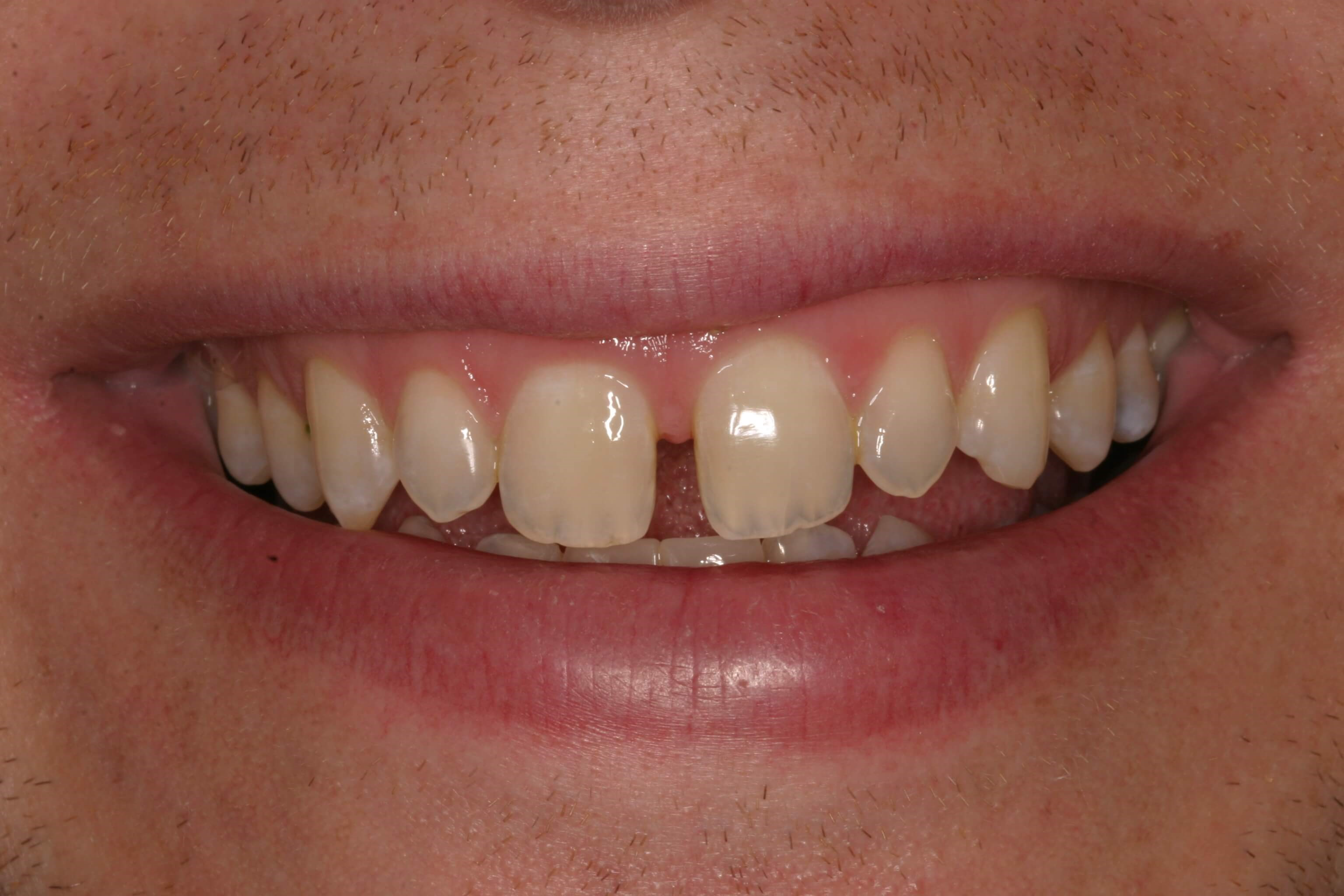 No Spaces After Veneers Before