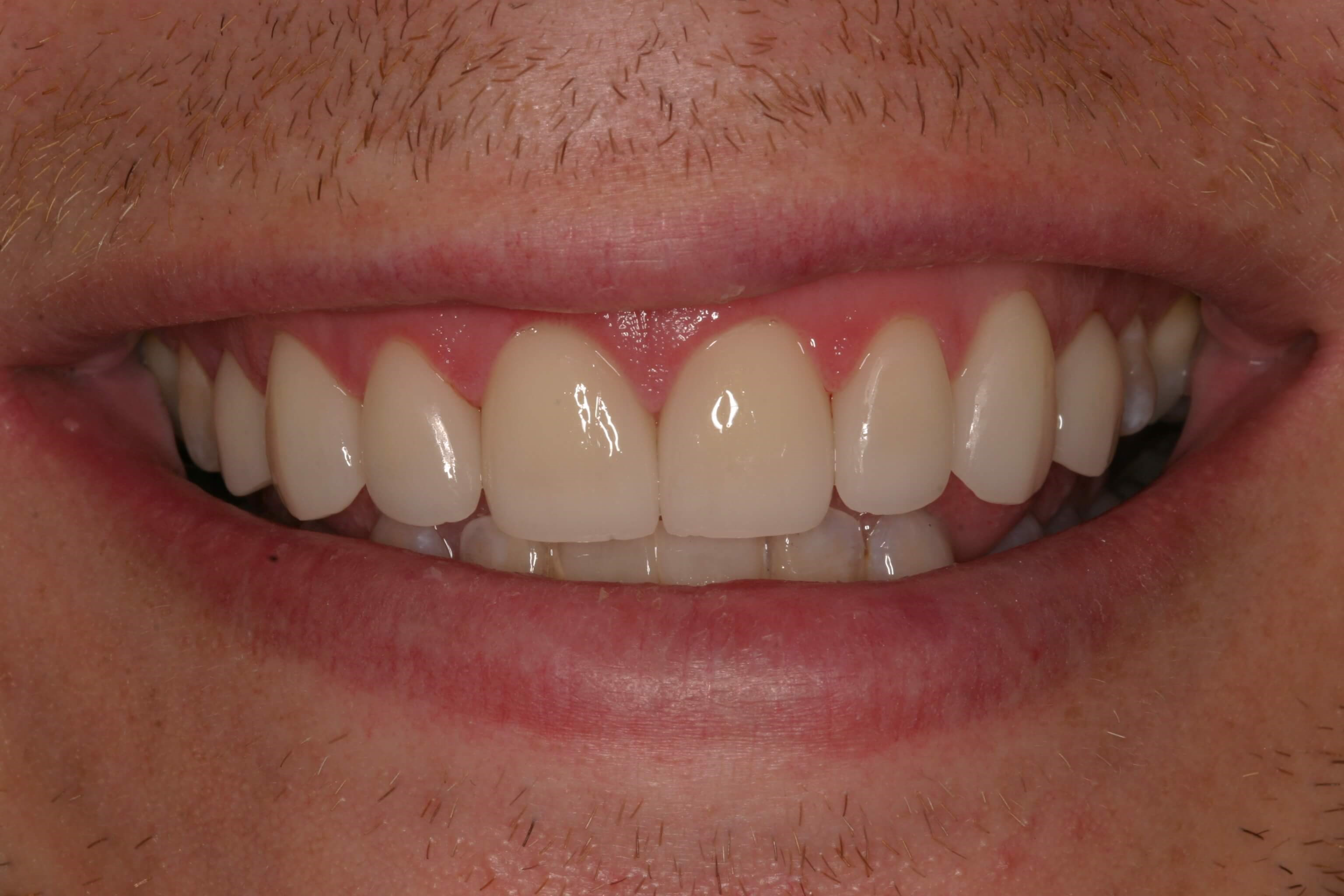 No Spaces After Veneers After