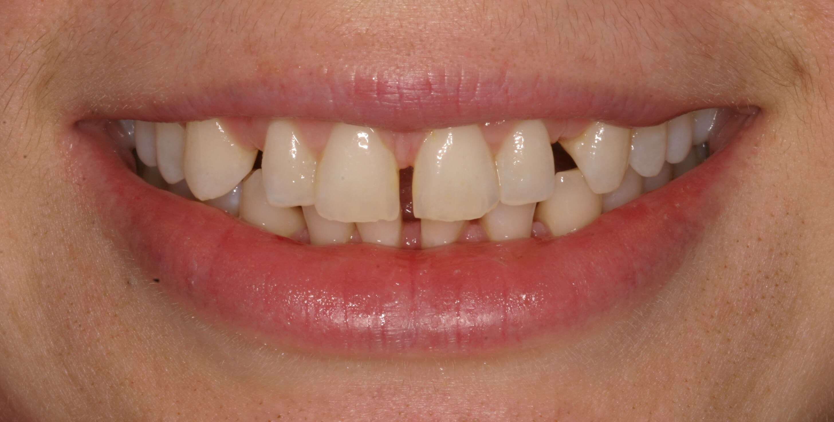 Veneers Straighten Teeth Before