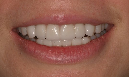 Veneers Straighten Teeth After