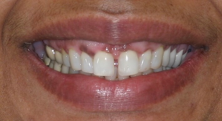 Smile Makeover Does the Trick! Before