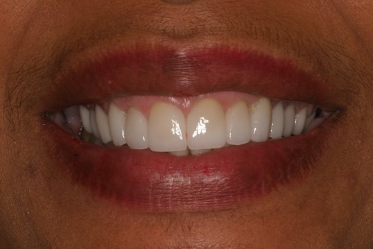 Smile Makeover Does the Trick! After