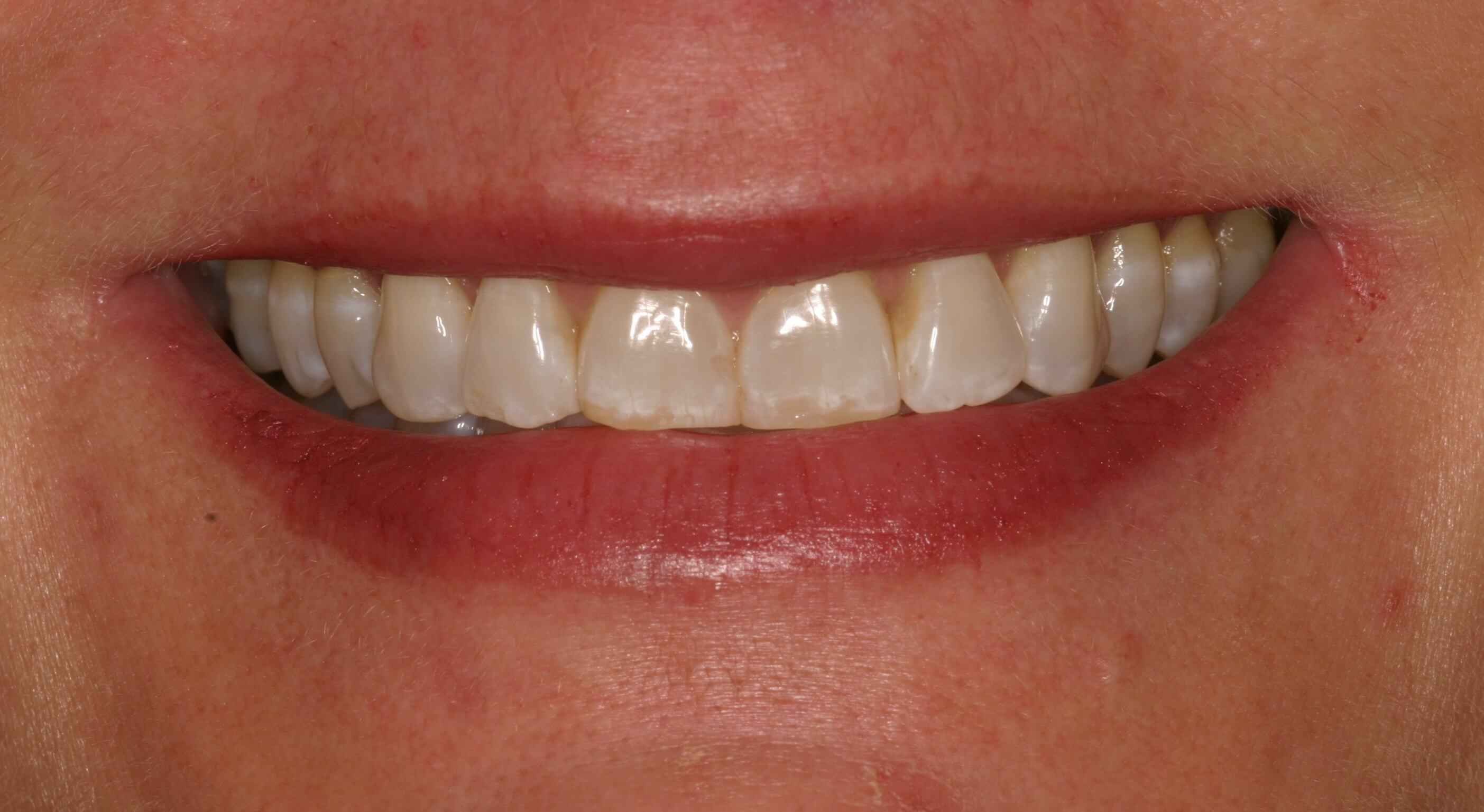 Veneers Lengthen Short Teeth Before