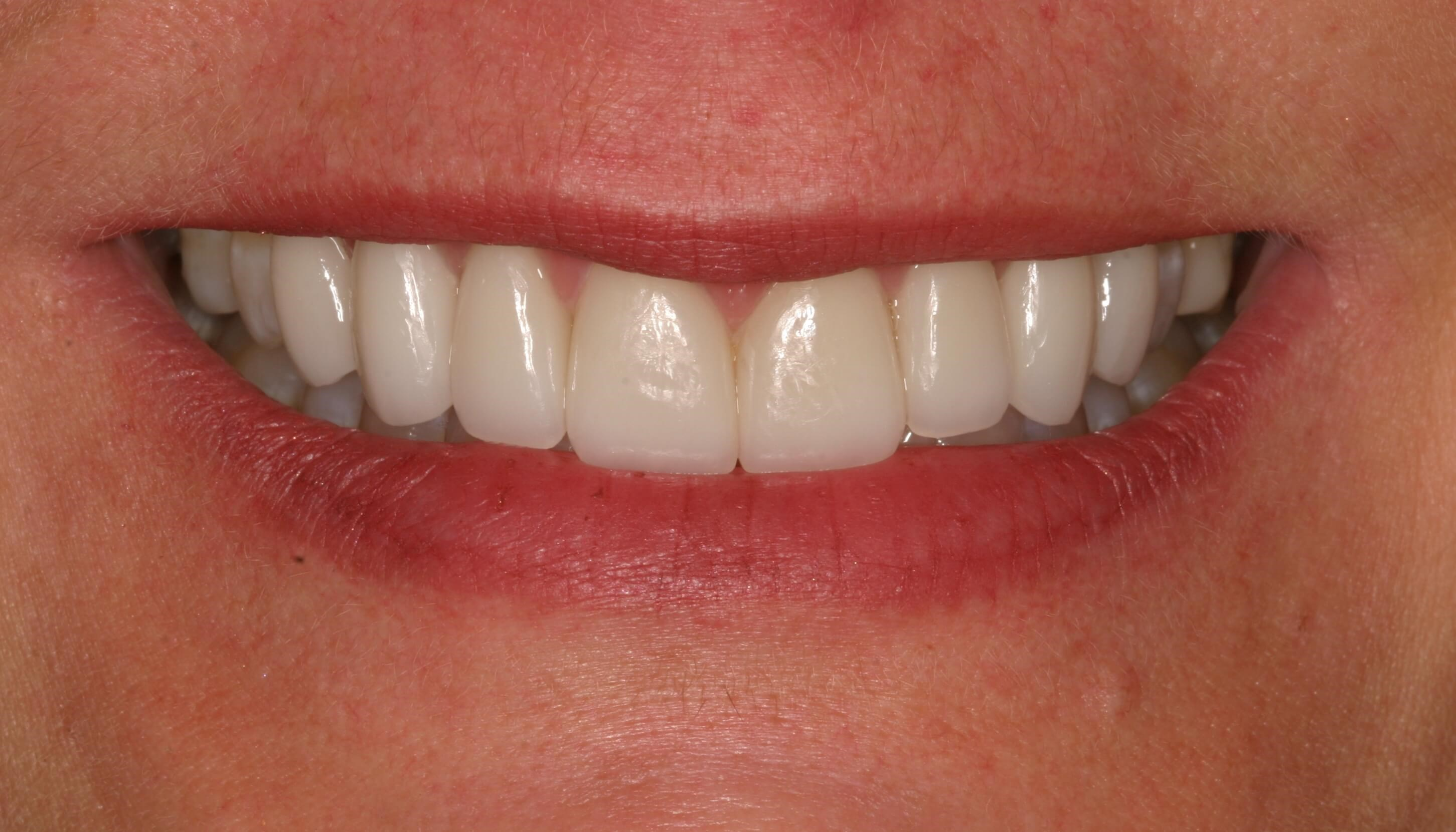 Veneers Lengthen Short Teeth After