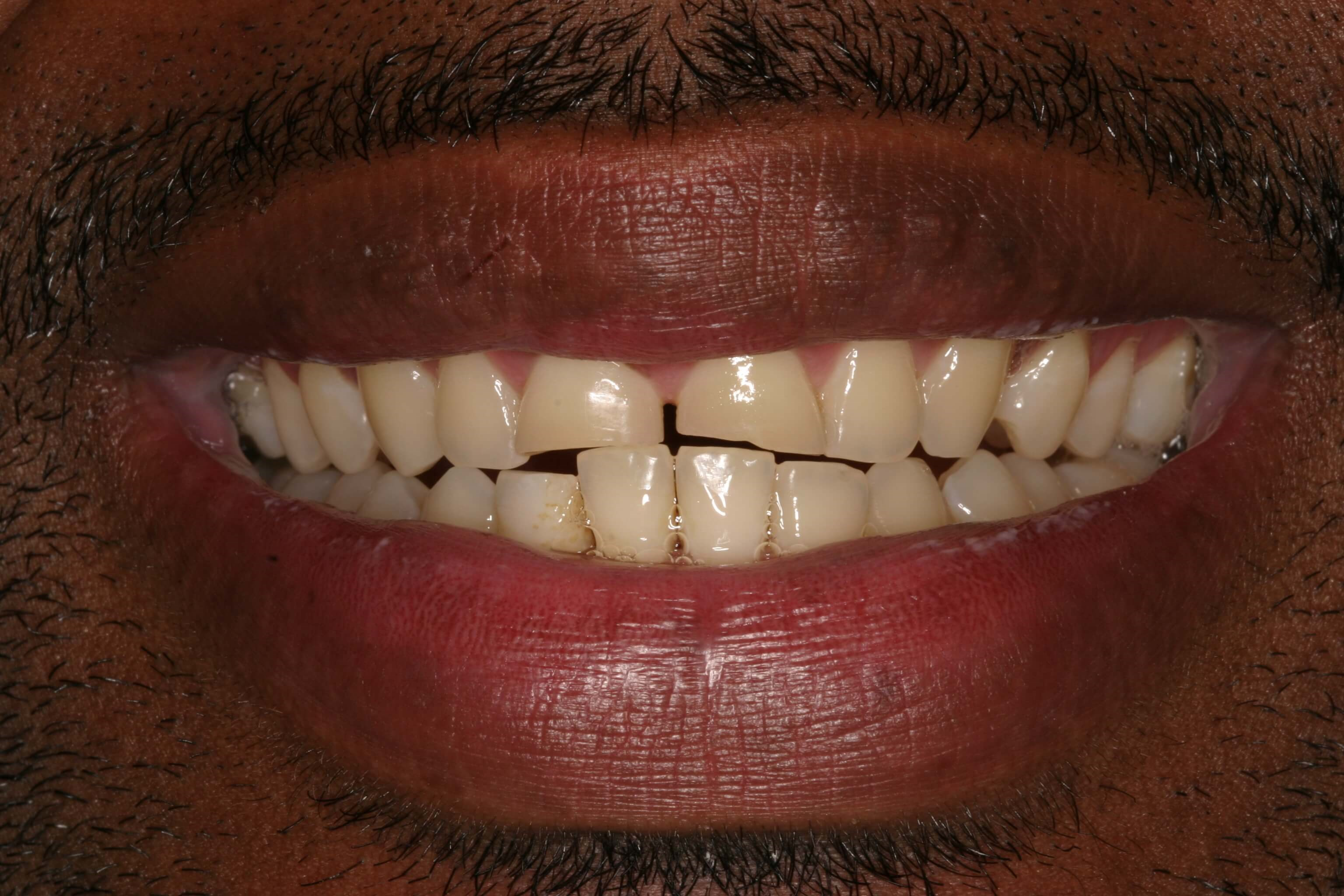 Veneers Renew Confidence Before