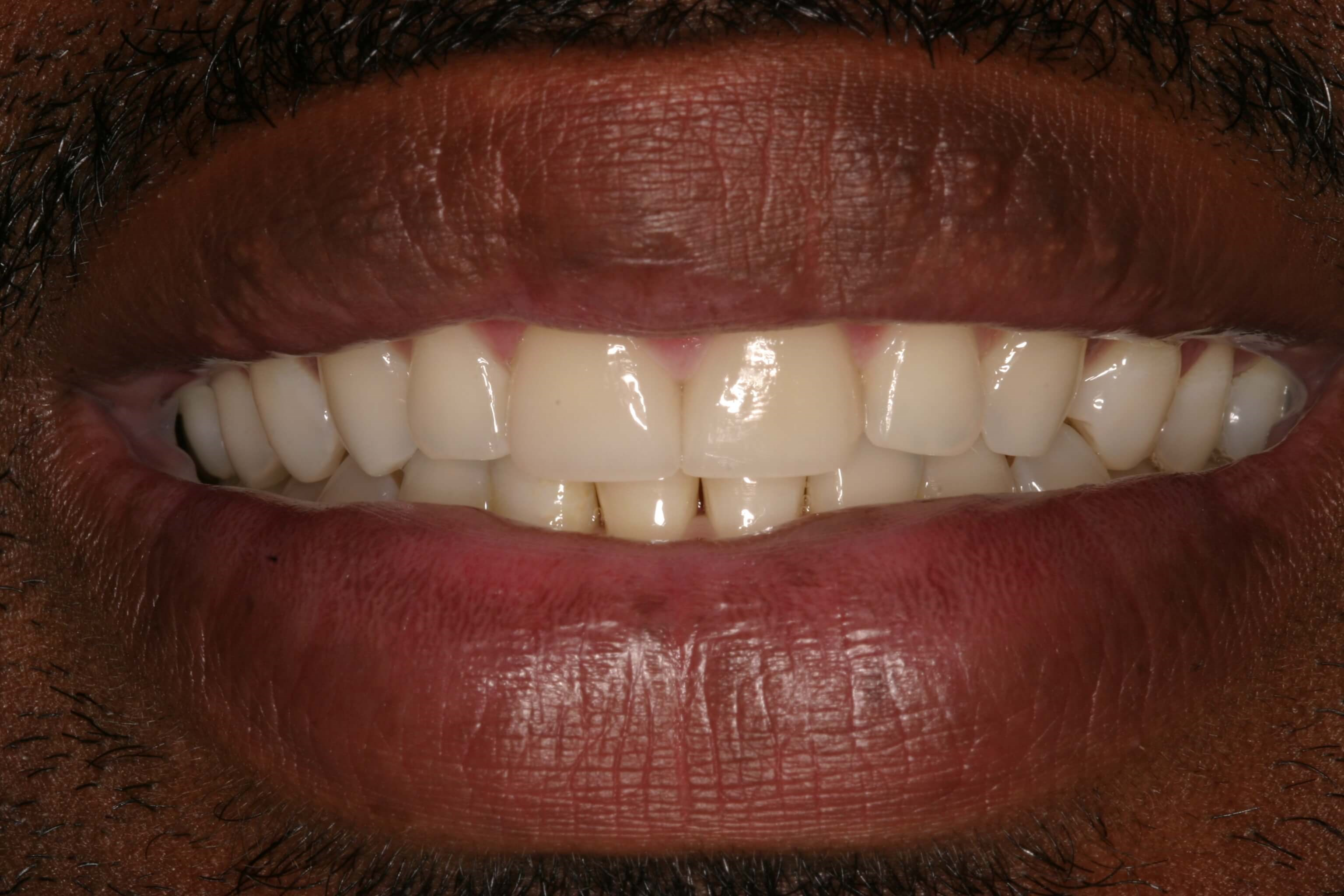 Veneers Renew Confidence After