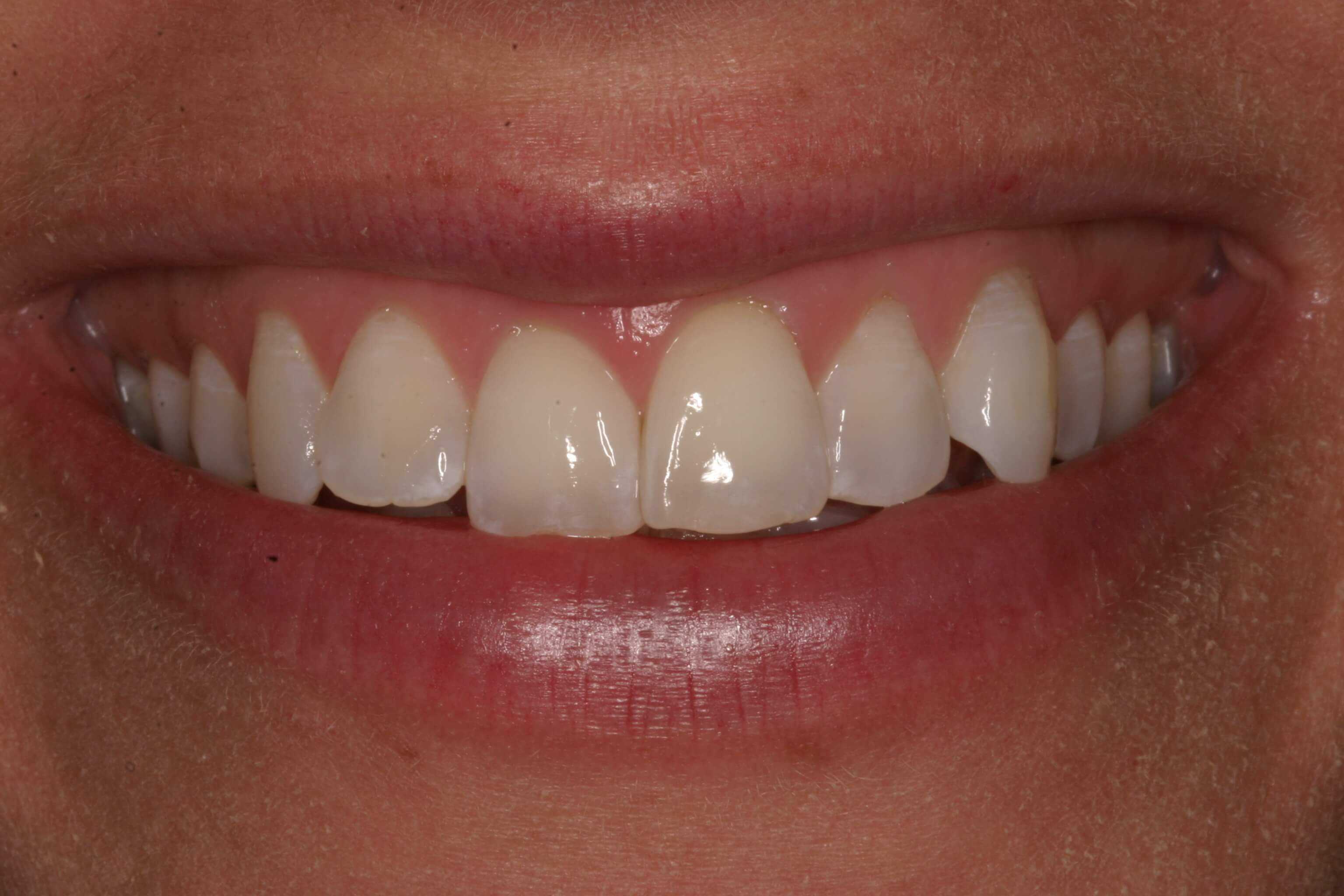 Veneers Correct After Braces Before