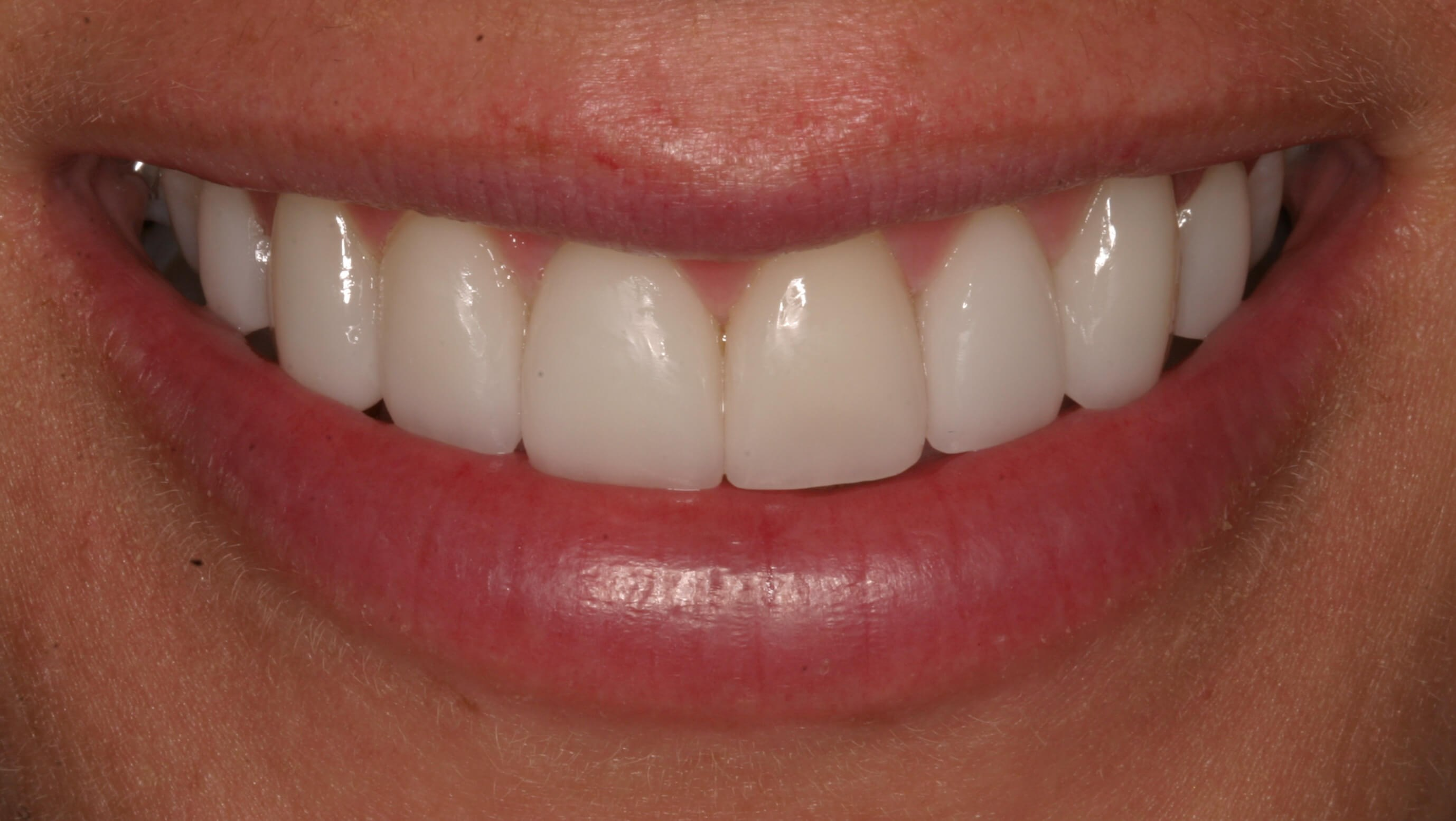 Veneers Correct After Braces After