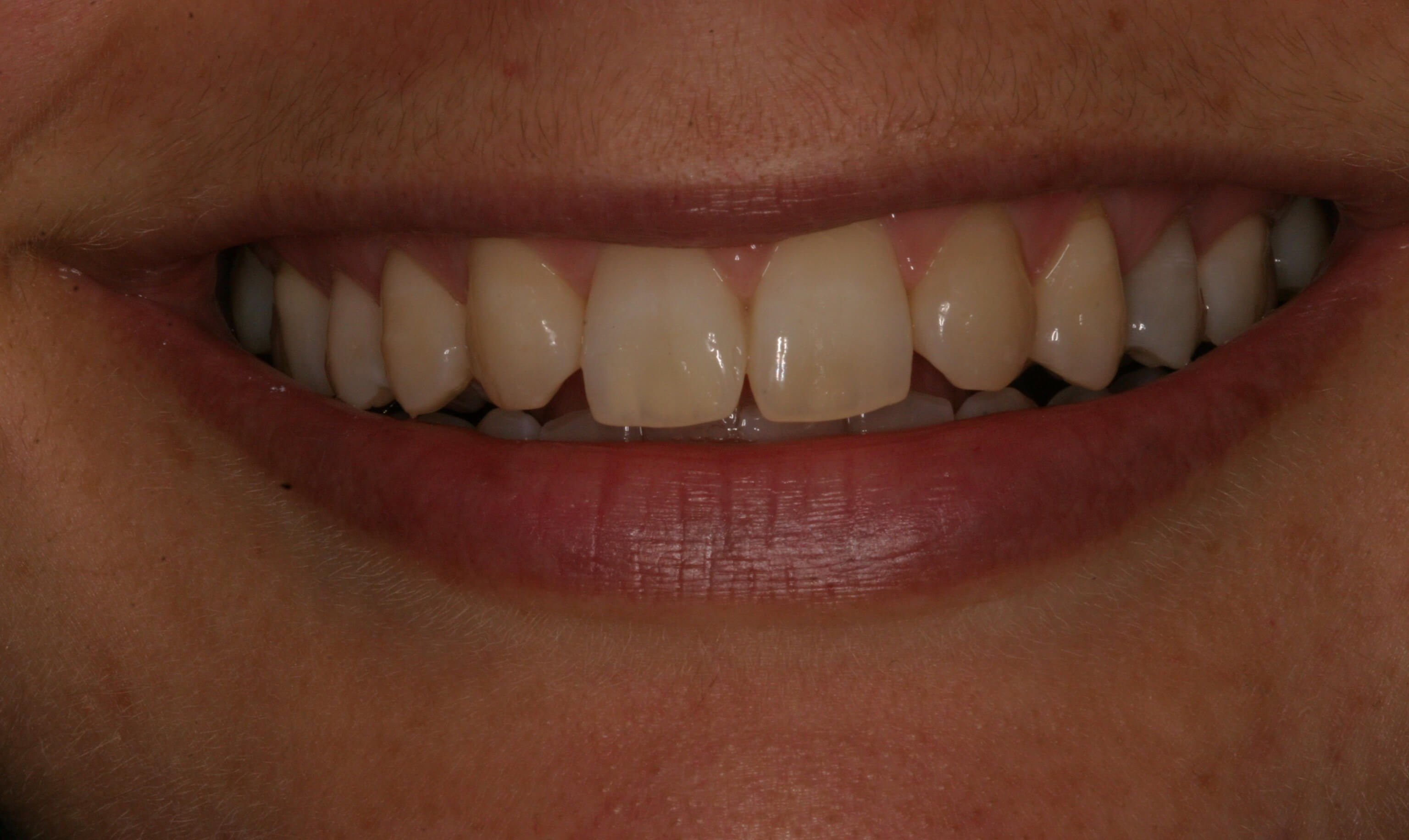 Veneers Create Smile Symmetry Before