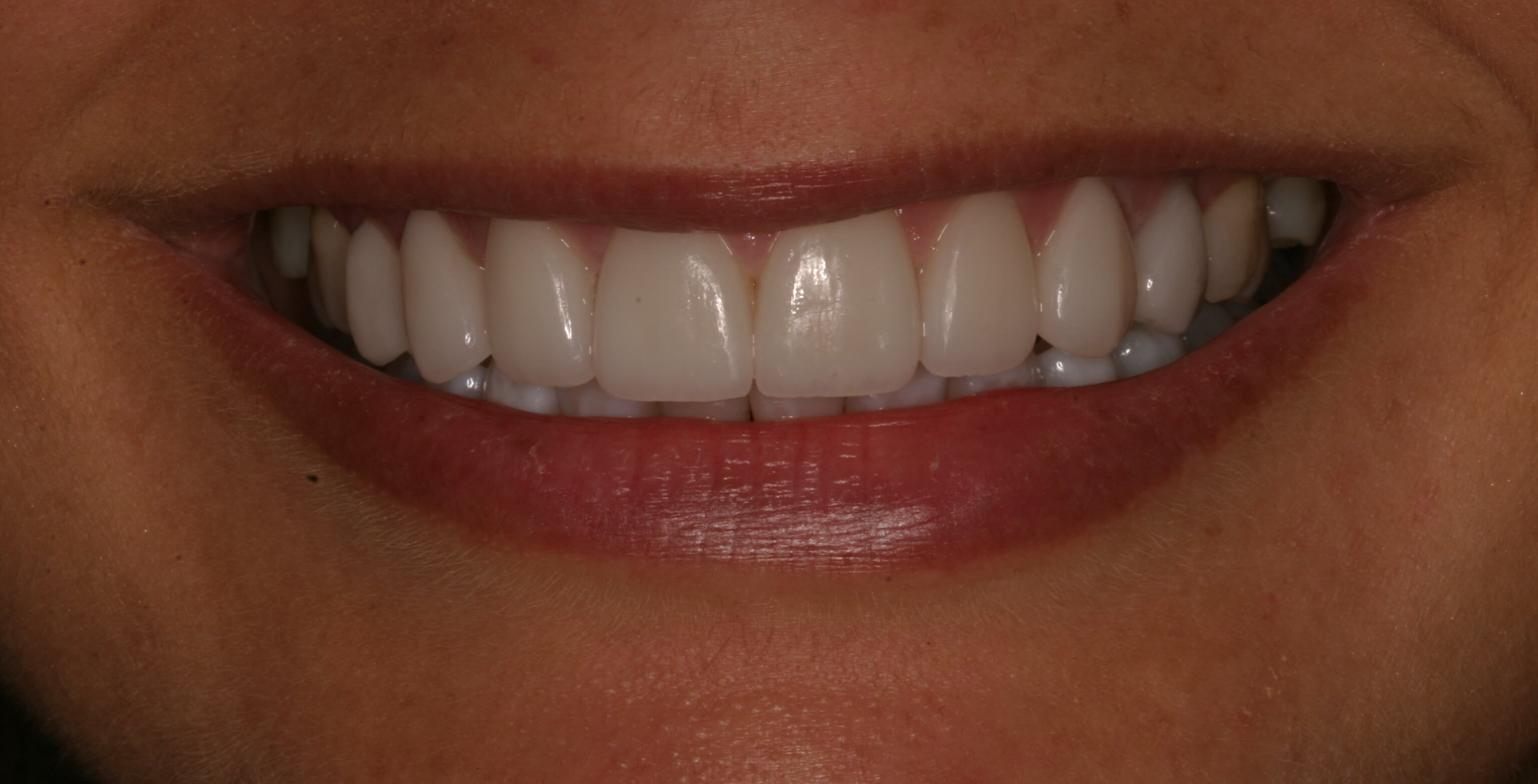 Veneers Create Smile Symmetry After