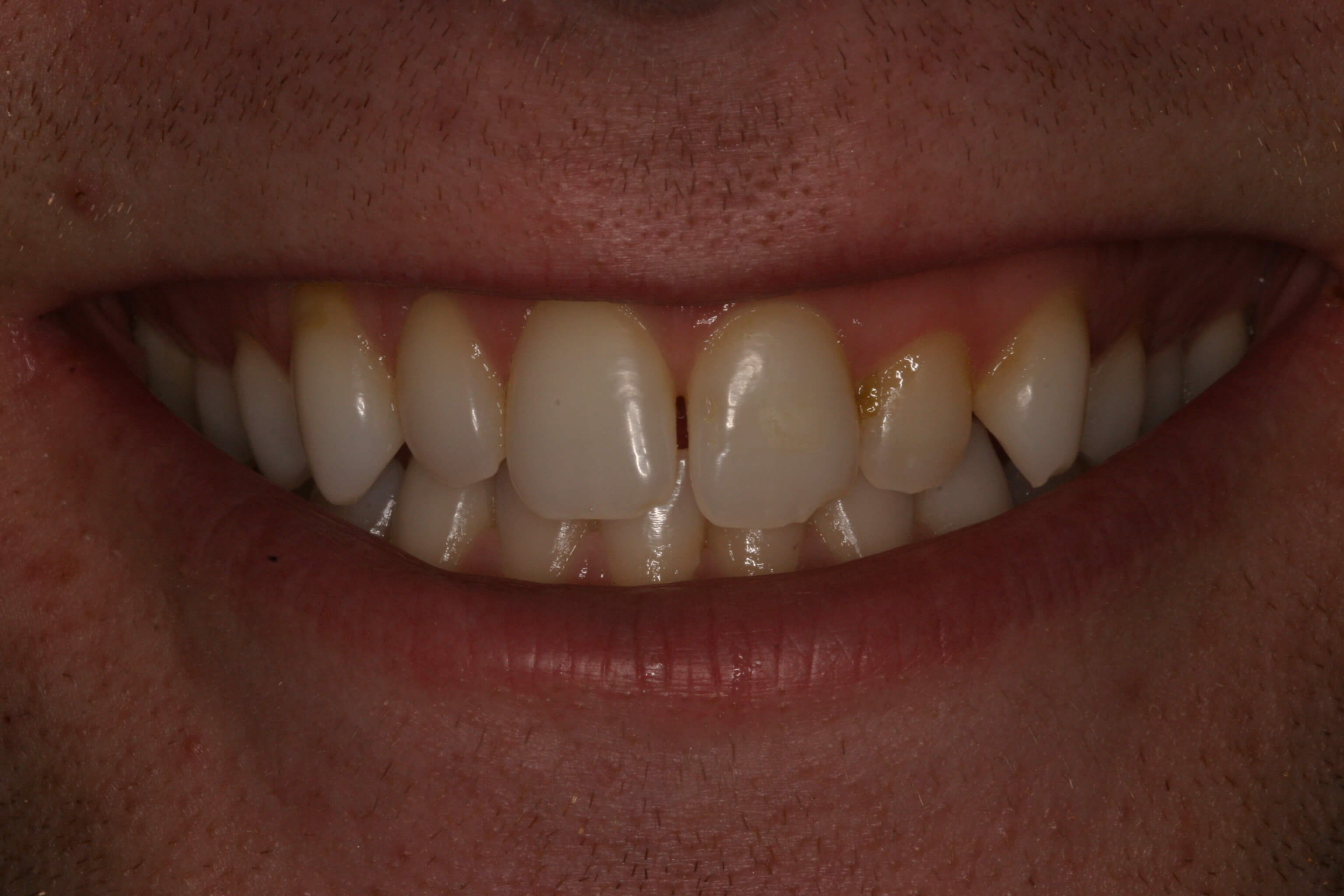 Groom Gets Veneers for Camera Before