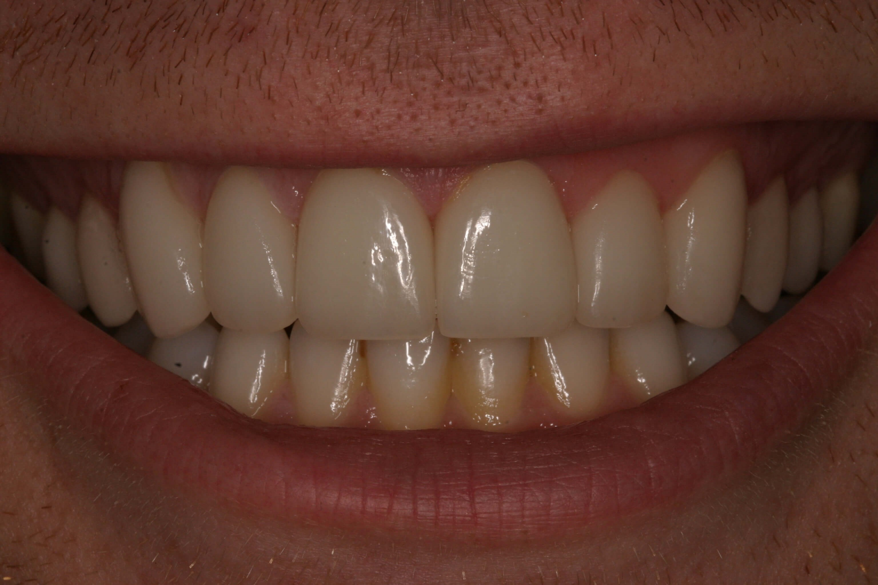 Groom Gets Veneers for Camera After