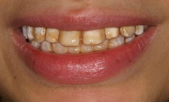 Veneers Whiten Teeth Forever! Before