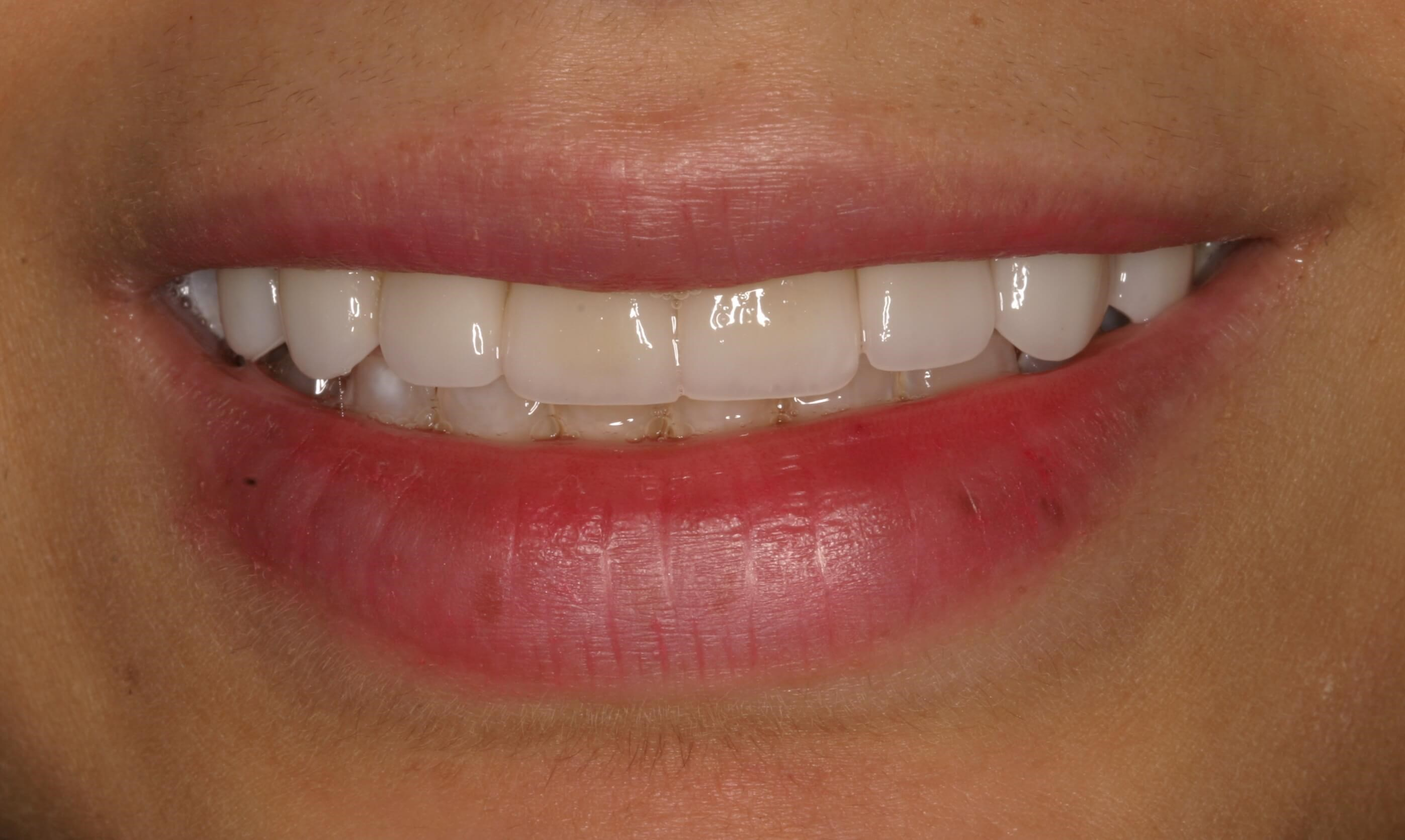 Veneers Whiten Teeth Forever! After