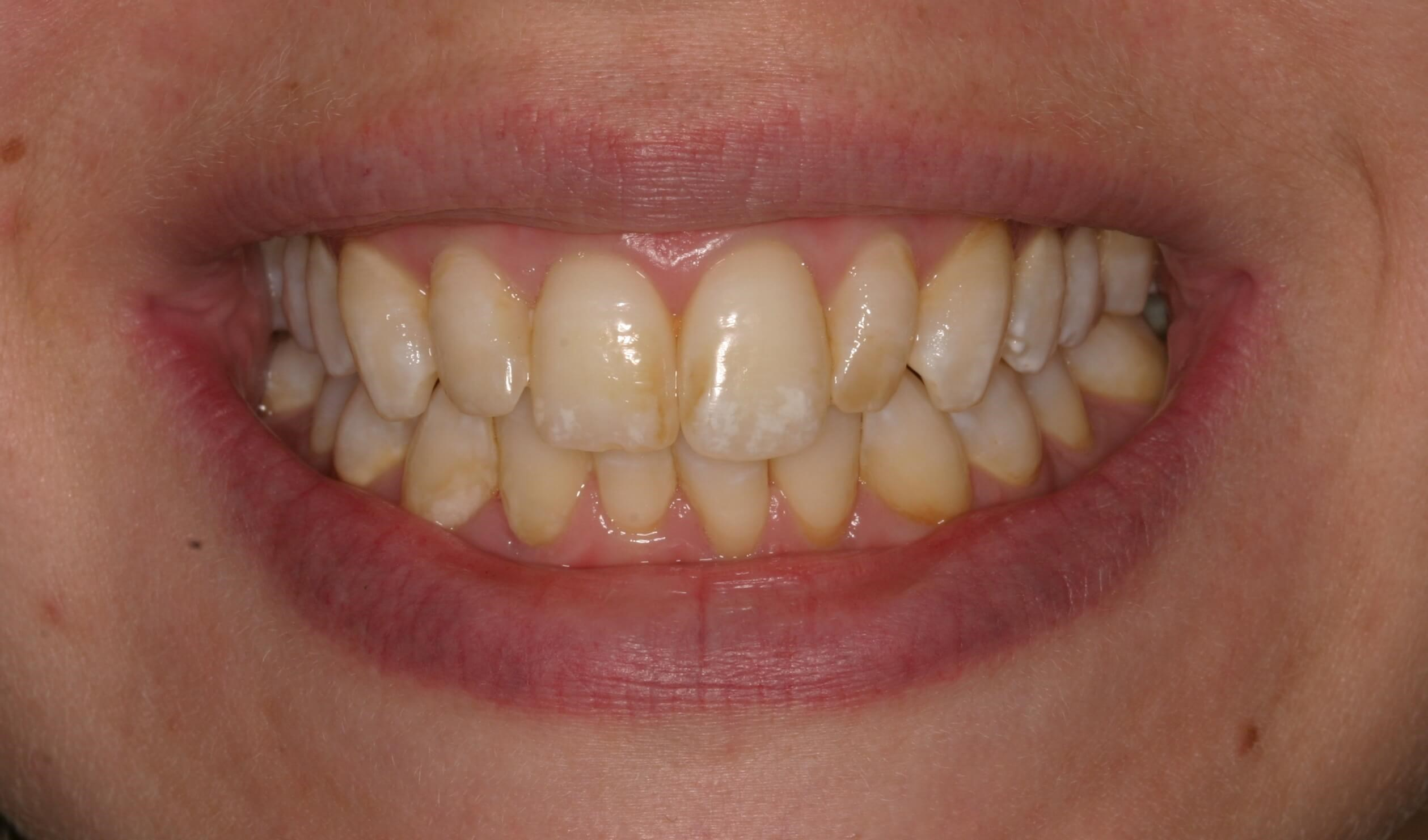 Veneers LIghten Teeth Before