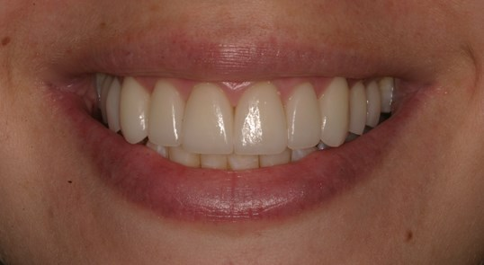Veneers LIghten Teeth After