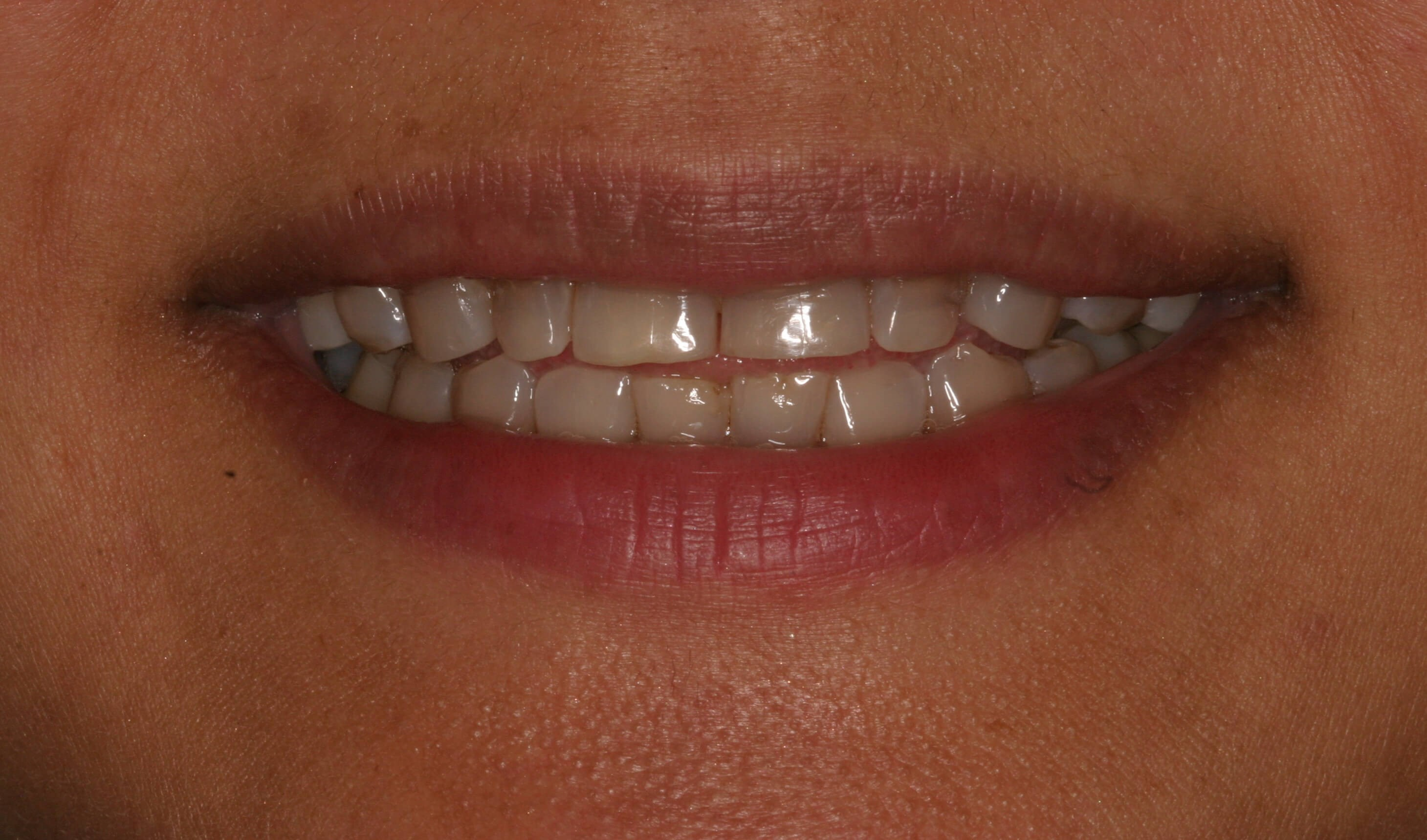 Veneers Eliminate Stains! Before