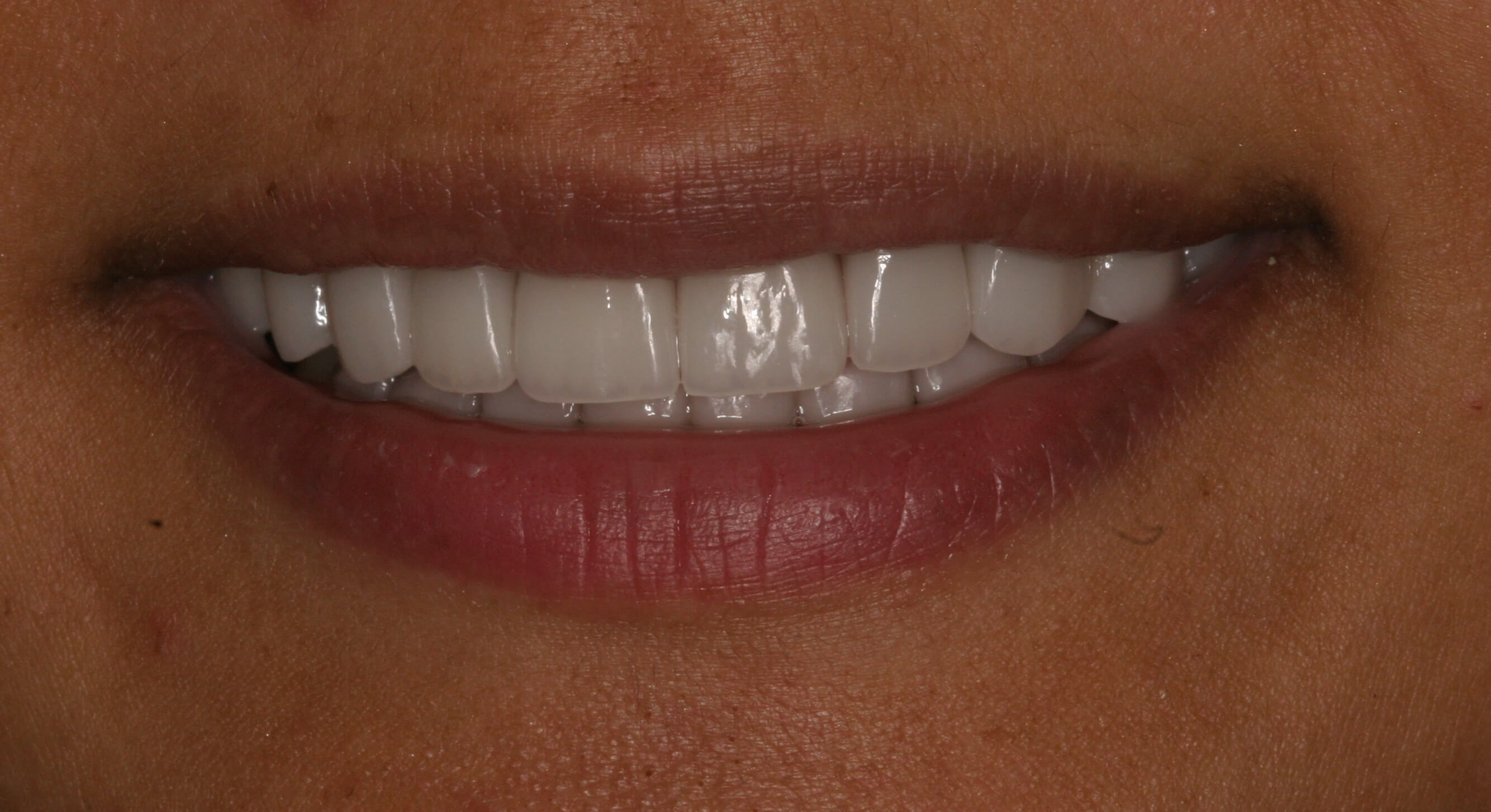 Veneers Eliminate Stains! After