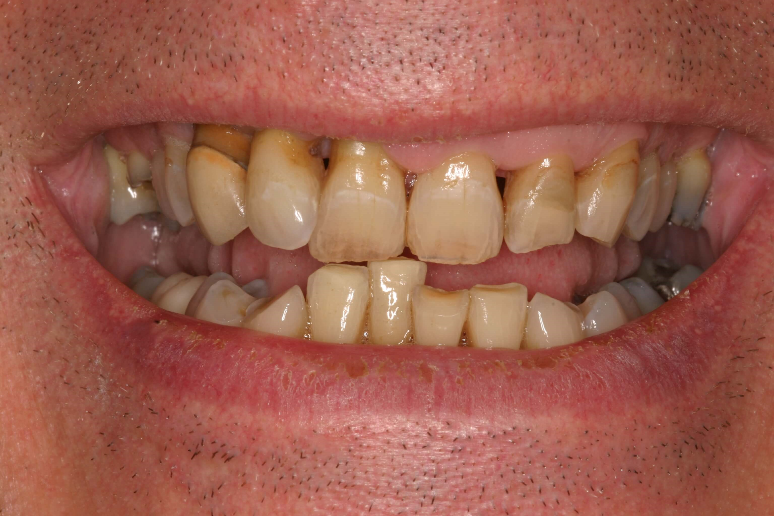 Veneers, Crowns Ramp Up Rehab Before
