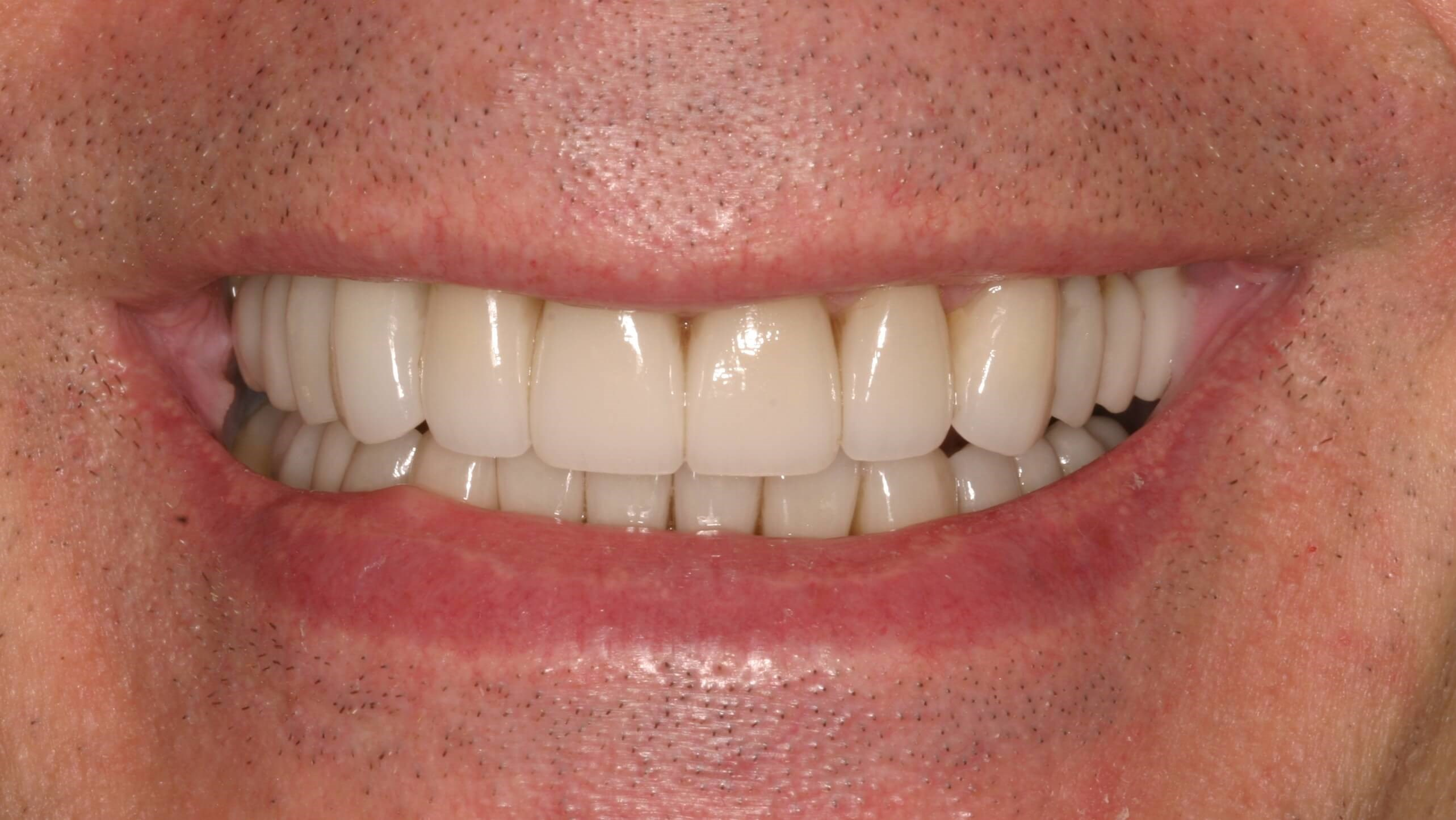Veneers, Crowns Ramp Up Rehab After