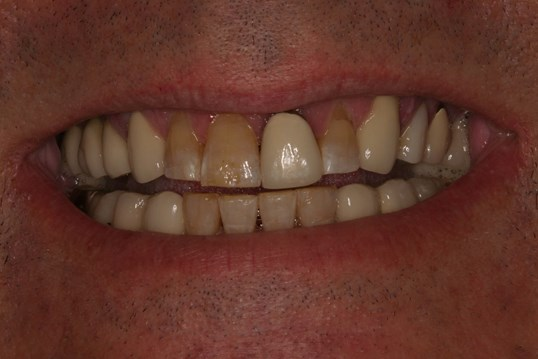 Veneers and Crowns = Youth! Before