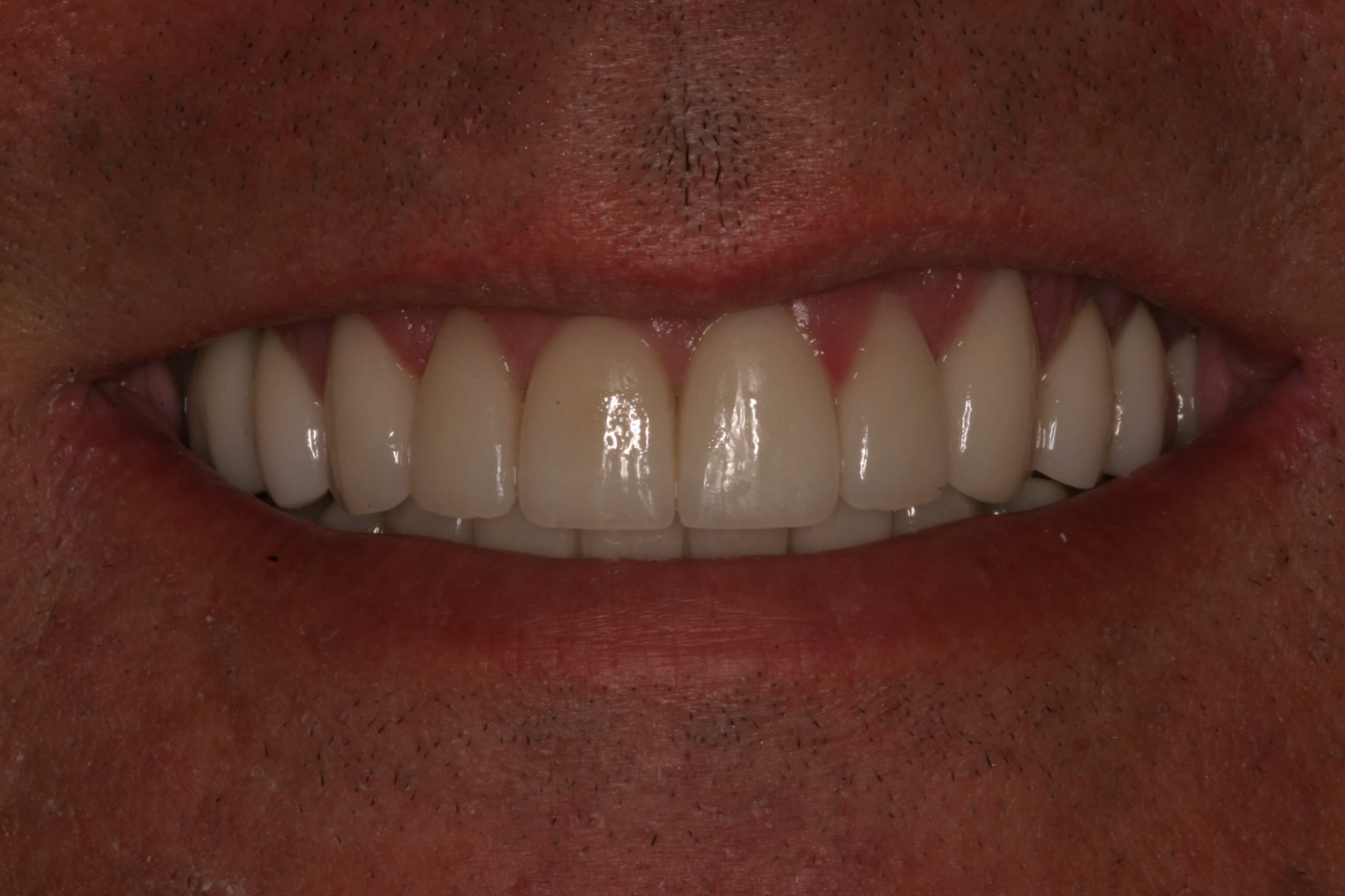Veneers and Crowns = Youth! After