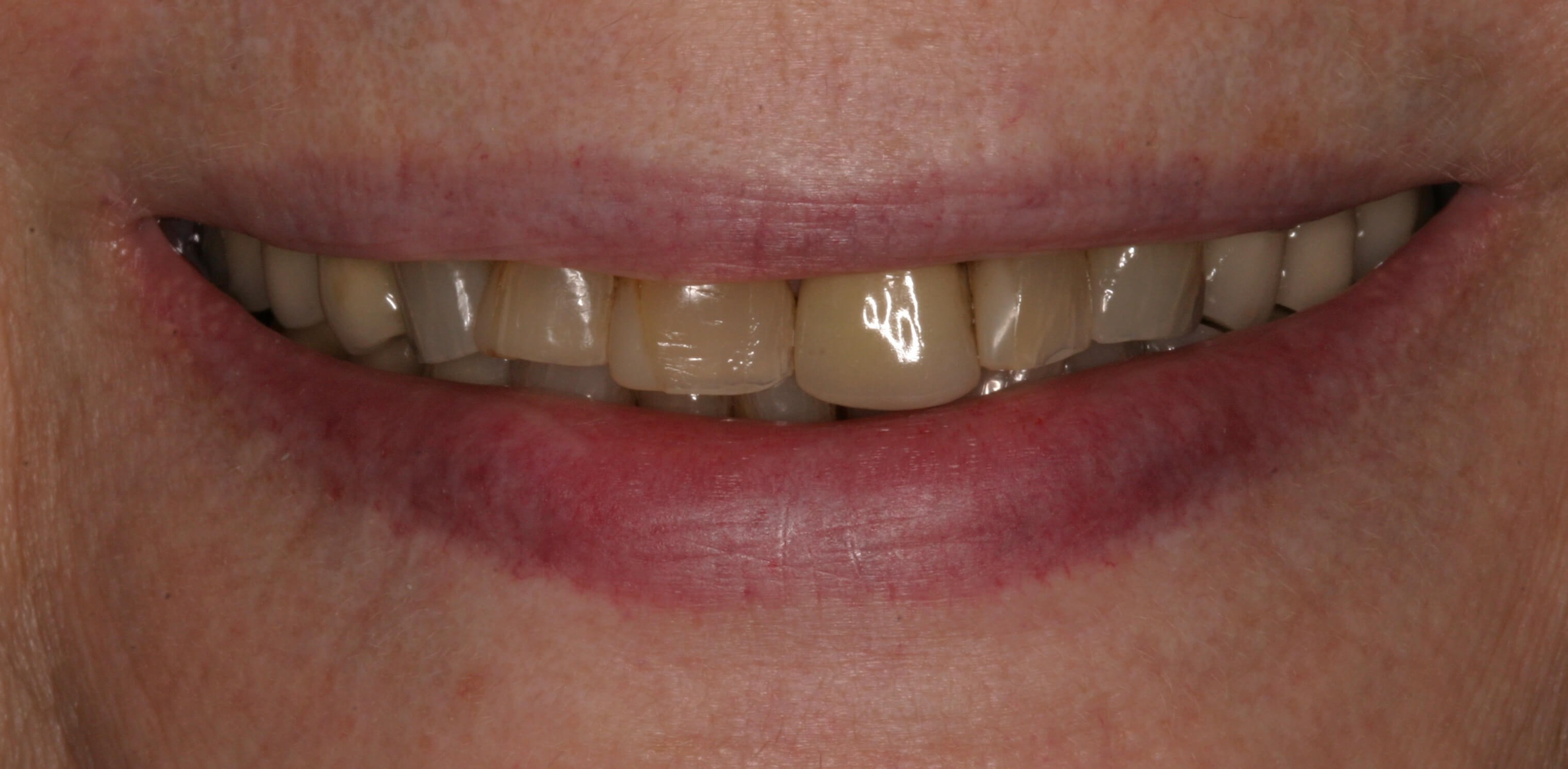Veneers, Crowns, Onlays Before