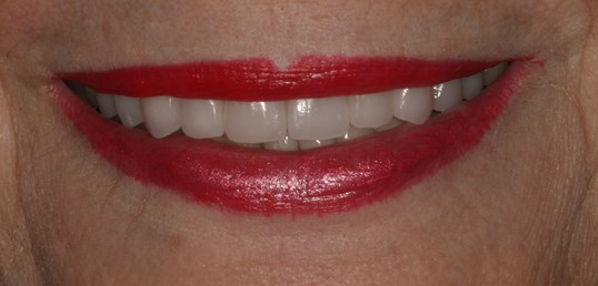 Veneers, Crowns, Onlays After