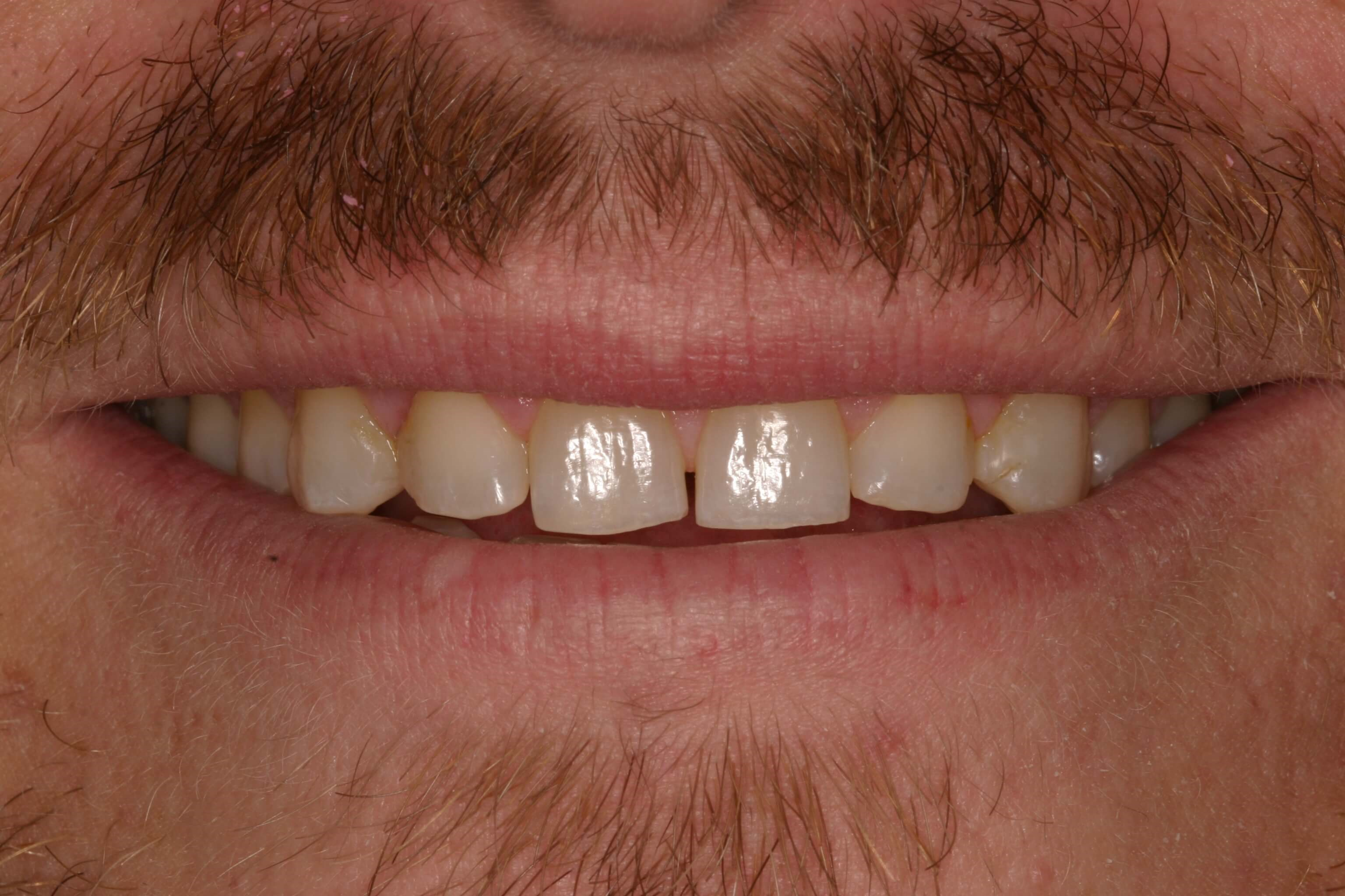 Veneers and Bite Balancing Before