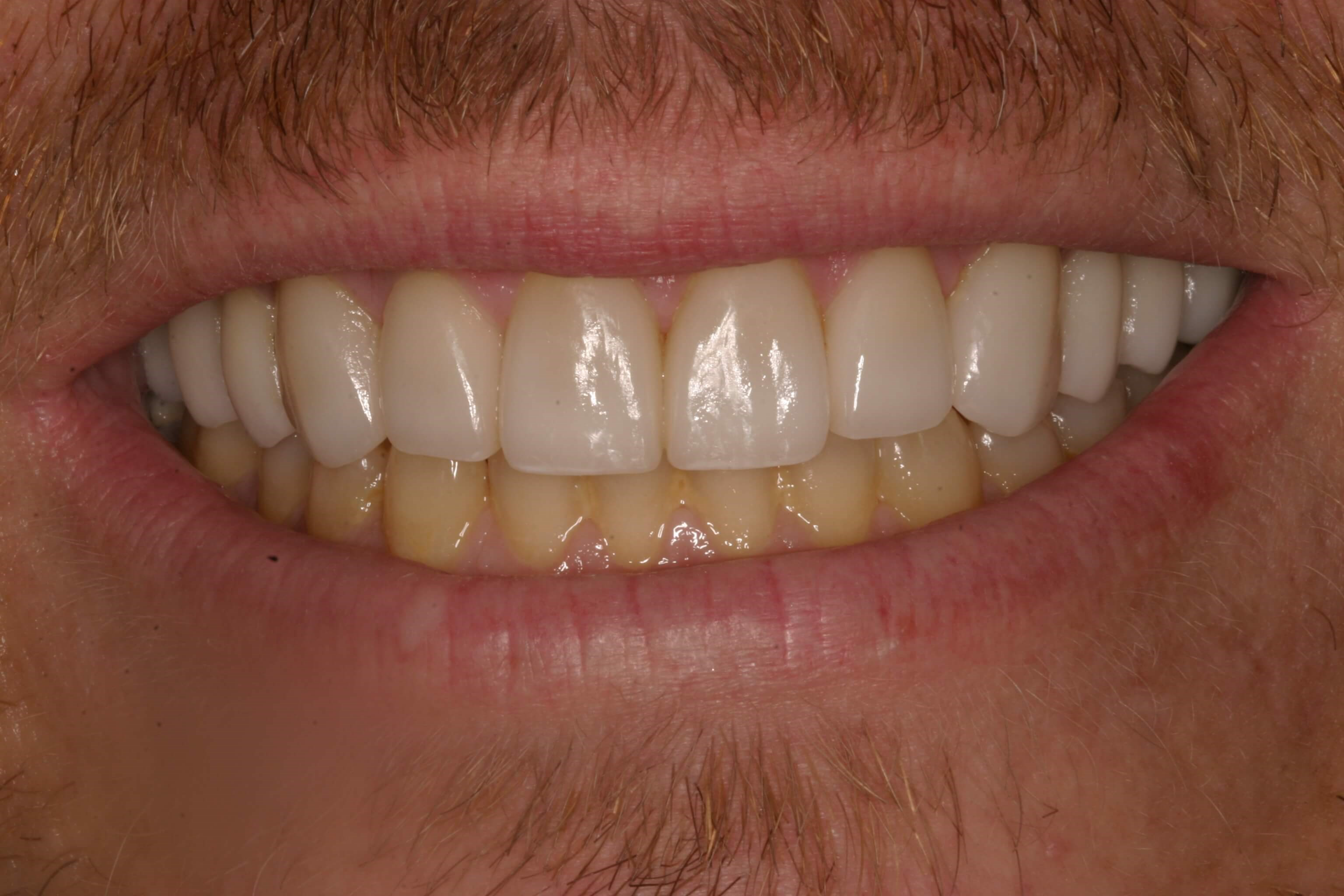 Veneers and Bite Balancing After