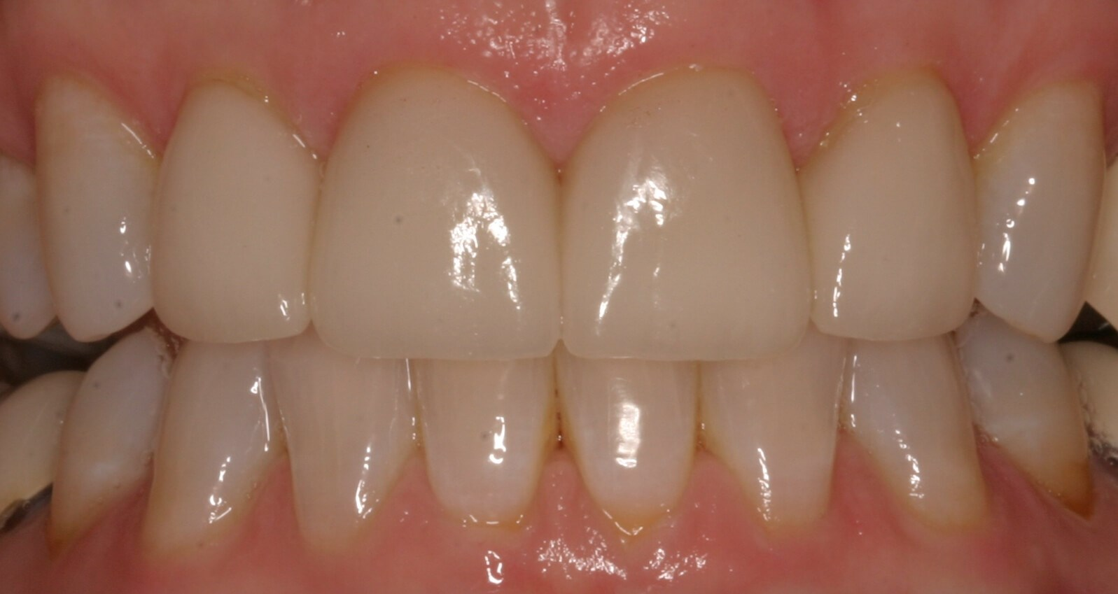 All Porcelain Crowns After