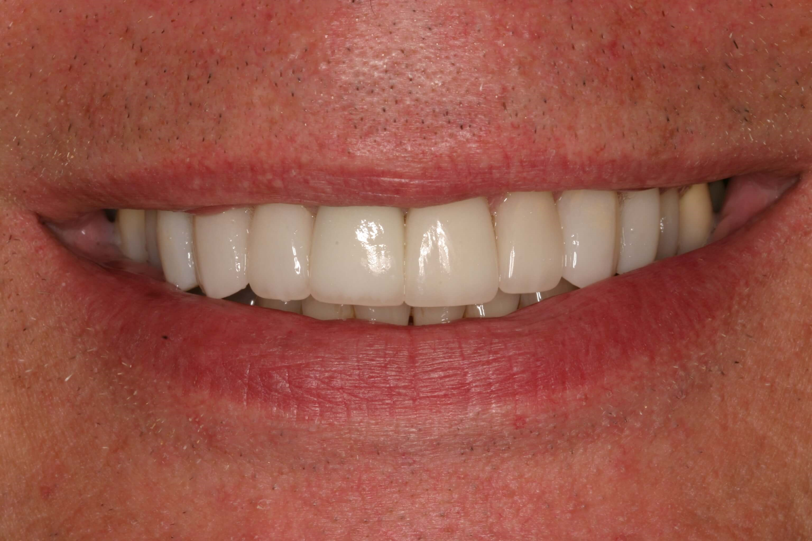 Porcelain Veneers and Crowns After